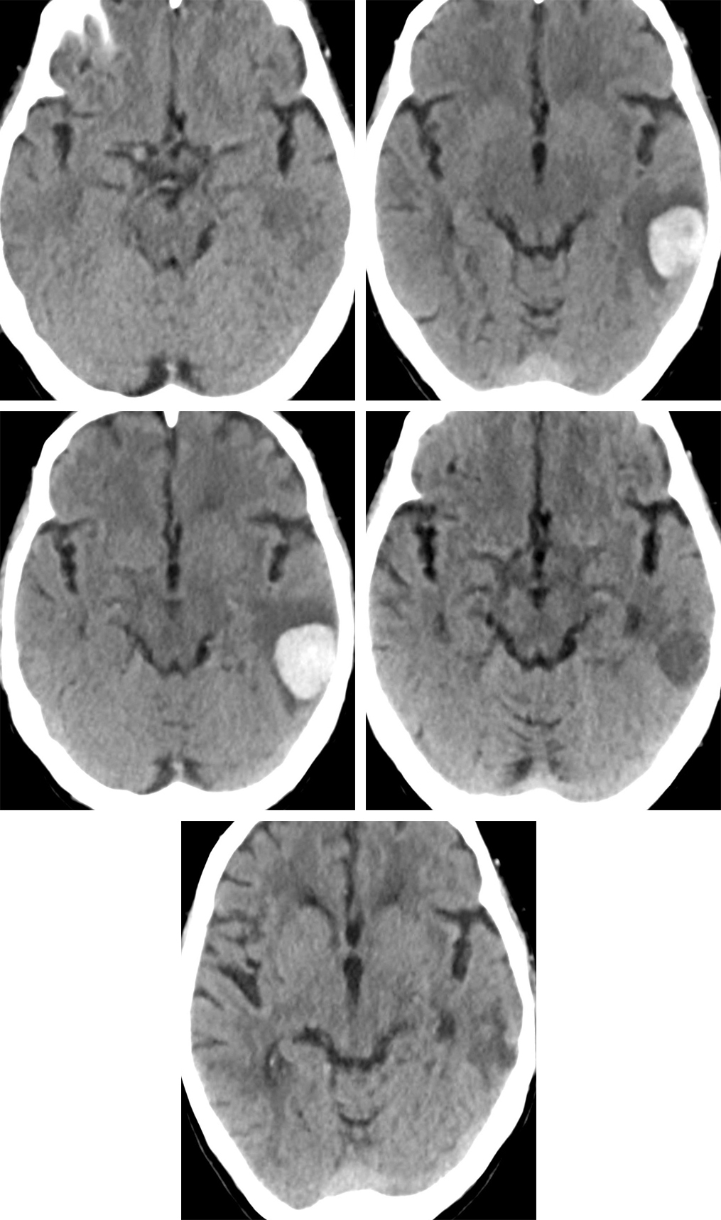 Figure 1: Multiple CT images over time demonstrate the evolution of a hemorrhagic parenchymal contusion in a typical location over the petrous ridge of the temporal bone. The hematoma is not visible on day 1 (top row left), but appears and enlarges over the next few days (top row right and middle row left), a typical course for contusion. At day 17 (middle row right), all that remains is a hypodense hematoma that has already begun to involute. 1 year from the initial trauma, the previous hematoma has evolved into a small amount of encephalomalacia (bottom row).