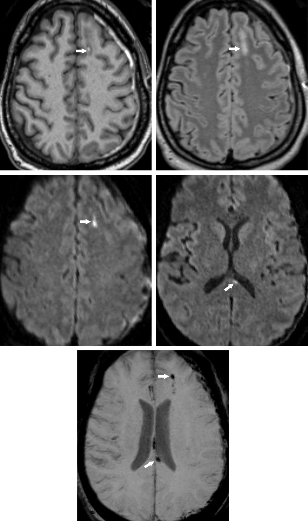 Figure 1: Shear injury is visible in the subcortical white matter of the left frontal lobe in this patient as hyperintense on T1 due to hemorrhage (top row left). The same area is bright on FLAIR due to edema (top row right) and bright on DWI due to cytotoxic edema (middle row left). The SWI (bottom row) also shows low signal blood products in this area. Similar findings in the splenium of the corpus callosum (middle row right, bottom row) and posterior septum pellucidum (bottom row) indicate a grade 2 shear injury and portend a poorer prognosis than if the involvement were only at the gray-white junction. A subacute left subdural hematoma is also visible on each sequence, but most clearly visible as hyperintense on T1 (top row left).