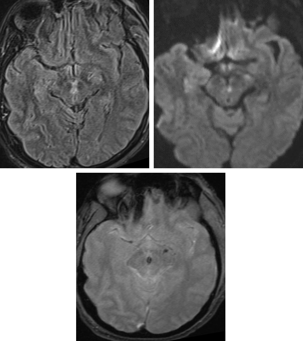 Figure 2: The FLAIR (top row left) and DWI (top row right) hyperintensity in the midbrain represent a nonspecific insult, but when combined with known recently decompressed trantentorial herniation and low signal intensity susceptibility artifact on GRE (bottom row), this abnormality likely represents a Duret hemorrhage.