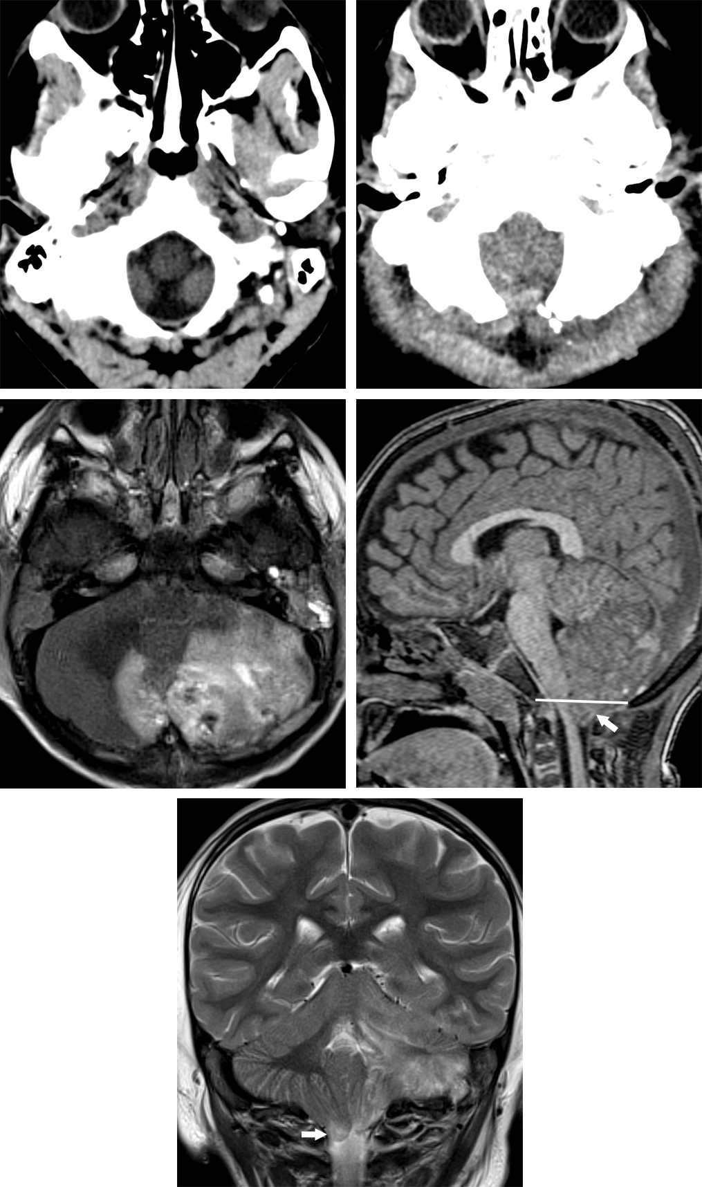 Figure 3: Normal (top row left) and cerebellar tonsillar herniation (top row right) patterns through the posterior fossa on CT. Crowding and lack of low-density CSF at the foramen magnus should prompt a search for cerebellar tonsillar herniation. Followup axial T2-weighted MR images (middle row left) on this 2-year-old patient after trauma more clearly revealed the posterior fossa contusion with high signal intensity edema and low signal intensity hemorrhage in the cerebellum. Blood is also present in the left mastoid air cells as a result of a fracture. The sagittal (middle row right) and coronal (bottom row) images demonstrate edematous cerebellar tonsils (arrow) herniating below the level of the foramen magnum (line).