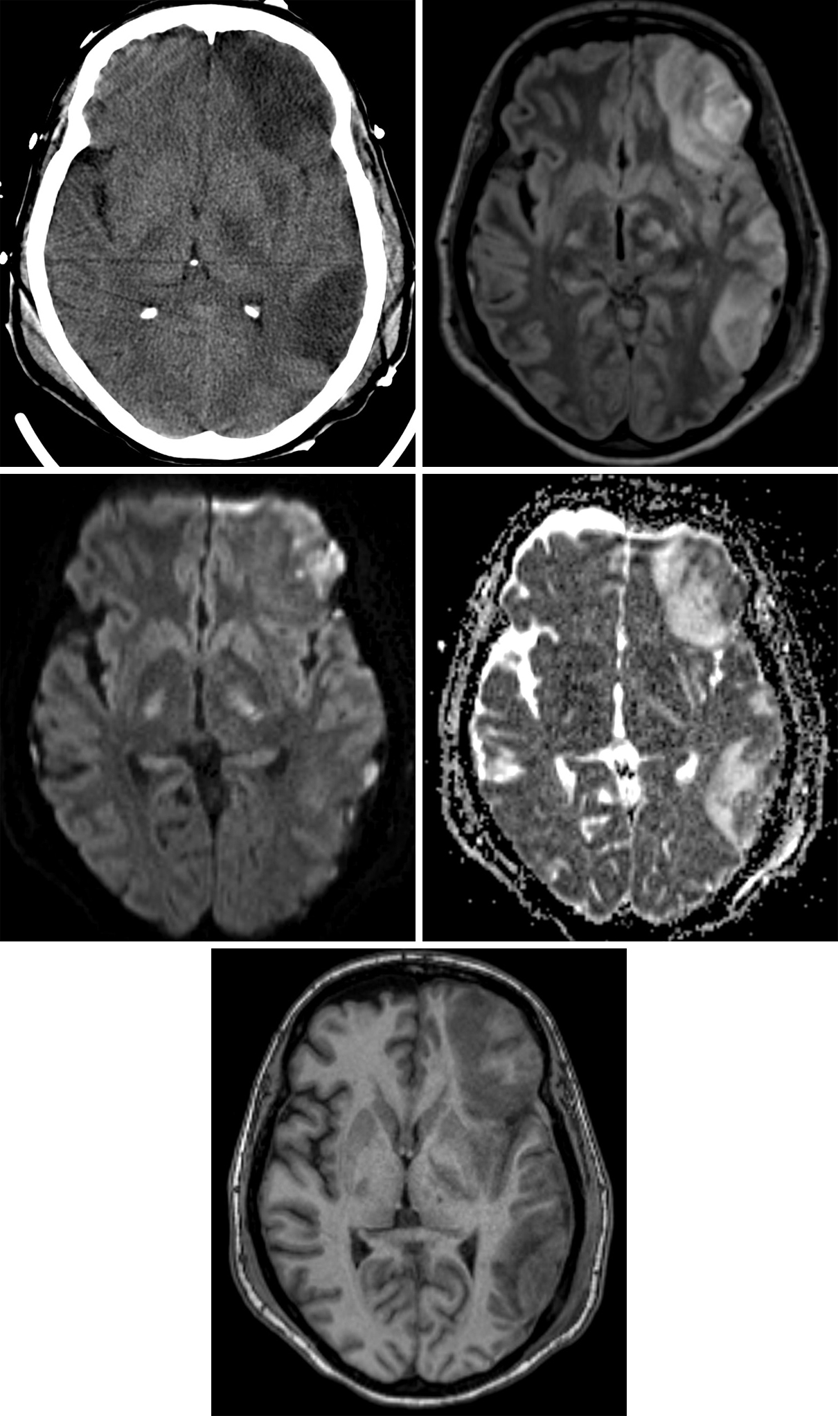 Figure 1: Lateral left frontal and temporal contusional edema is of low density on this CT image (top row left). FLAIR image (top row right) demonstrates the hyperintense edema in the lateral left frontal lobe and lateral left temporal lobe. The involvement of the cortex implies a component of cytotoxic edema, while white matter involvement may be either cytotoxic or vasogenic in etiology. Diffusion-weighted imaging (middle row left) demonstrates hyperintensity in a smaller region of the lateral left frontal lobe and lateral left temporal lobe. The ADC (Apparent diffusion coefficient) image (middle row right) shows a sizeable component of hyperintense vasogenic edema with a smaller component of low signal-intensity cytotoxic edema in the more superficial contusion of the lateral left frontal and temporal lobes. The edema is predominantly hypointense on this T1-weighted image (bottom row), but the areas of more superficial hyperintensity imply a small hemorrhagic component to these contusions.