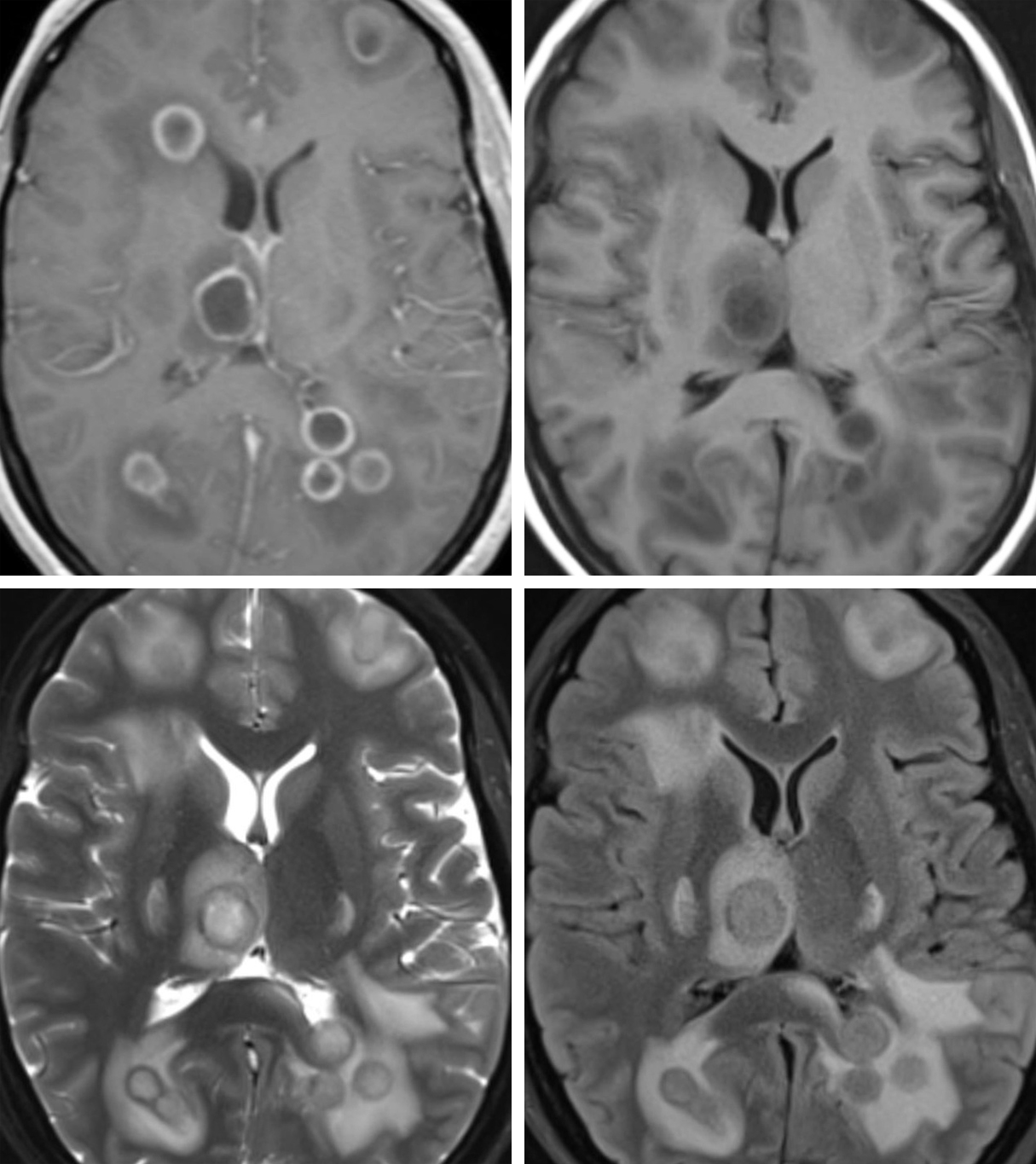 Figure 1: Post-contrast T1 weighted image (top row left) demonstrates multiple supratentorial ring-enhancing lesions with a thin capsule consistent with Early Capsule stage. Not shown here – the side of the capsule that is nearest a ventricle is often thinner, making it prone to rupture with intraventricular extension causing life-threatening ventriculitis or development of satellite abscesses. Prior to the administration of contrast, the abscesses (top row right) are less conspicuous, only visible as hypointense lesions with slightly less dark surrounding edema. The capsule itself is often mildly hyperintense. The T2-weighted image (bottom row left) from this same patient illustrates the high signal-intensity necrotic center and high-signal surrounding vasogenic edema typical of abscesses. The capsule is low signal, which is believed to be due to alteration of the local magnetic field by high concentrations of oxygen free radicals. The findings on FLAIR (bottom row right) are similar to those on T2: high signal necrotic center and surrounding vasogenic edema. Not shown here – Spread of infection into the ventricles or extra-axial CSF spaces may result in incomplete suppression of fluid signal leading to subtly abnormally increased signal of the intraventricular CSF.