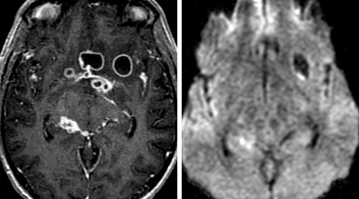 Figure 7: Tuberculous meningitis in the basal cisterns extends into the cerebral parenchyma and demonstrates a ring-enhancing pattern on T1 post-contrast image (left), but these lesions have no restricted diffusion on DWI (right) that is nearly always present in pyogenic abscesses. This is a common useful differentiating feature for atypical infections.
