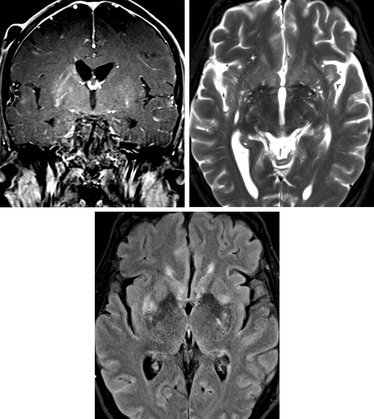 Figure 1: Cryptococcal Meningitis with Virchow-Robin space involvement. Coronal T1+C (top row left): Abnormal enhancement along the expected course of the perivascular spaces in the lentiform nuclei, greater on the right. Axial T2 (top row right): The appearance of the perivascular space involvement by cryptococcus can look similar to physiologic dilatation of these spaces. Axial FLAIR (bottom row): However, FLAIR hyperintensity in and around these perivascular should raise suspicion for cryptococcus in the appropriate clinical context.