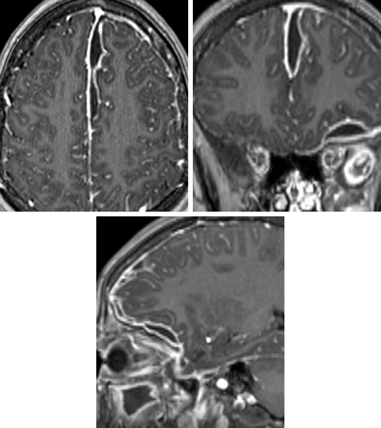 Figure 2: The T1 post-contrast sequences show loculation and avid peripheral enhancement of this same subdural collection along the falx and along the inferior surface of the left frontal lobe. Also notice the thickening and enhancement of the adjacent meninges.