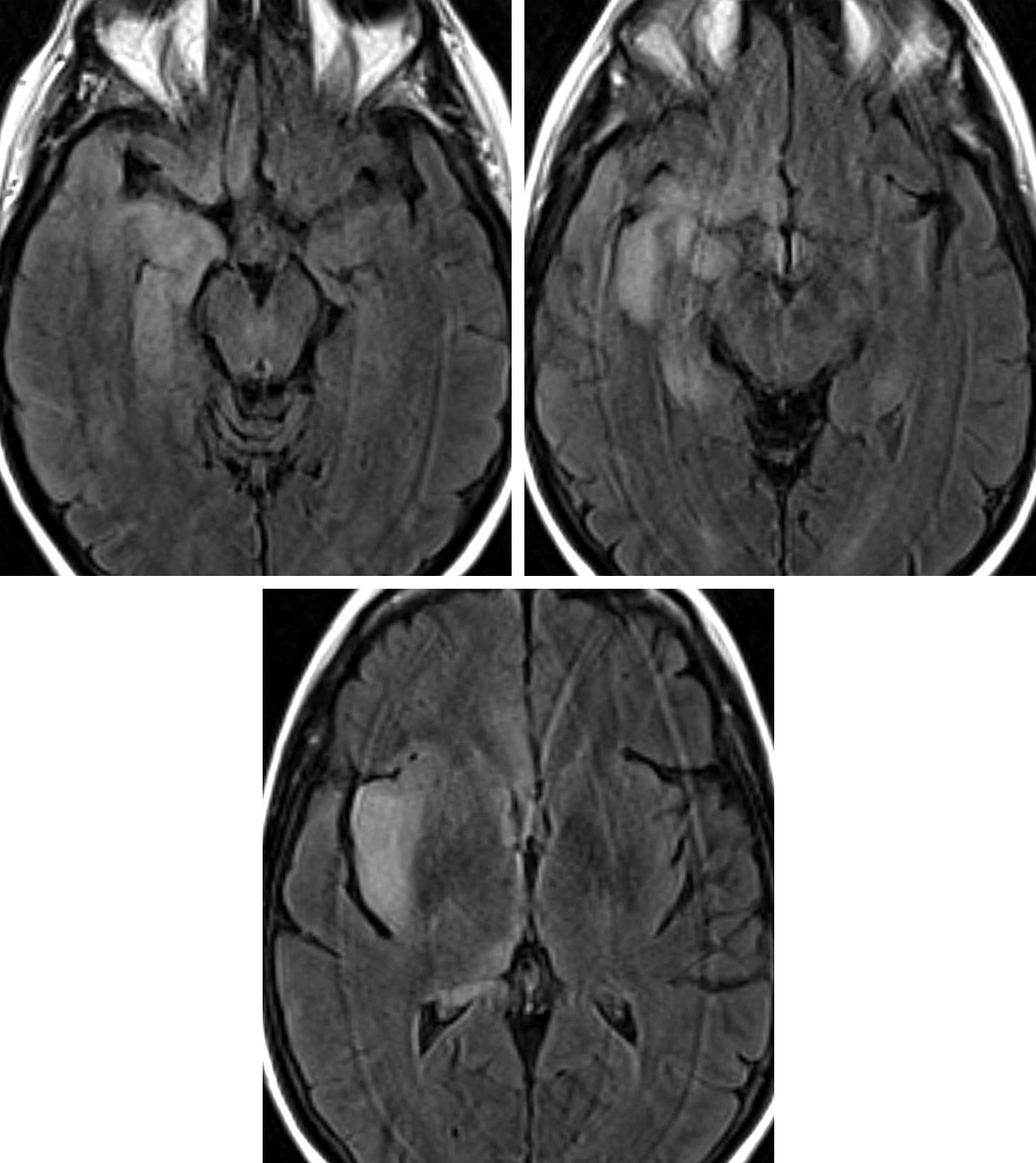 Figure 2: In the same patient as Figure 1, Axial FLAIR MR images demonstrate hyperintense edema involving the cortex and subcortical white matter of the medial anterior right temporal lobe, inferior right frontal lobe and right insular cortex with sparing of the basal ganglia.