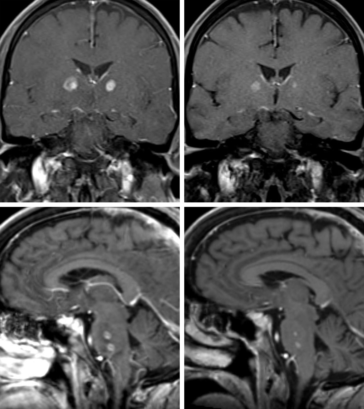 Figure 6: Coronal (top) and sagittal (bottom) T1 post-contrast imaging demonstrates enhancement in the rim of the toxoplasmosis lesions (left), improved after 2 months of antiparasitic therapy (right).