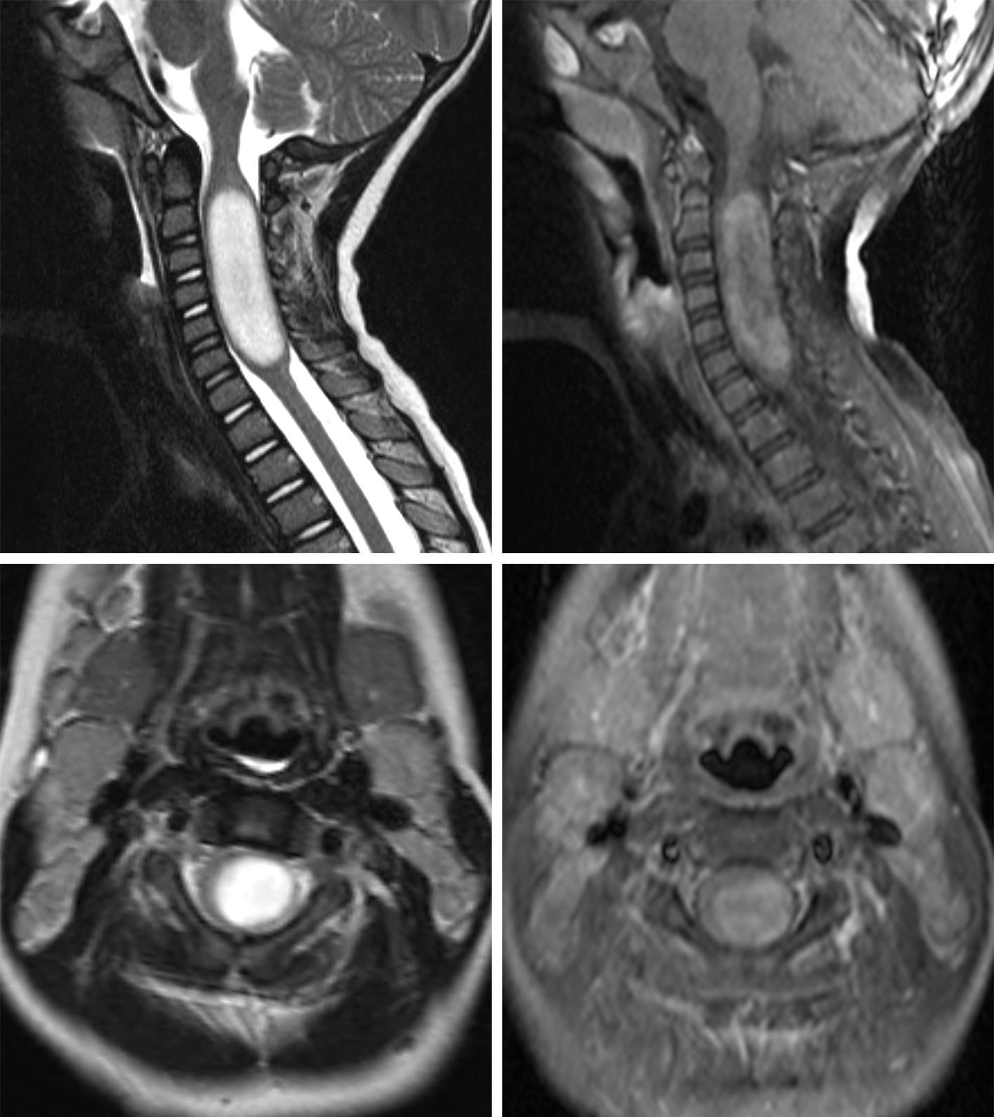 Figure 1: Sagittal and axial T2 (top row left and bottom row left) and sagittal and axial T1 post-contrast fat-saturated (FS) (top row right and bottom row right) images of the cervical spine demonstrate a slightly eccentric, T2 hyperintense mass with patchy enhancement expanding the cervical spinal cord in this pediatric patient who presented with paresthesia and weakness in the upper extremities. The imaging appearance, location, and clinical history favor astrocytoma although other intramedullary neoplasms could be included in the differential diagnosis.