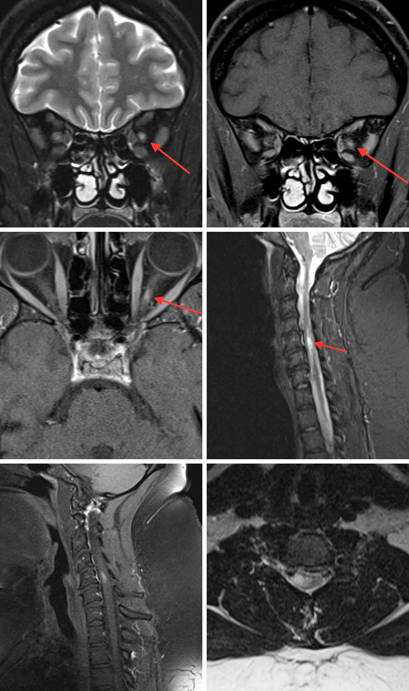Figure 2: Coronal T2FS (top row left), coronal T1 post-contrast fat-saturated (FS) (top row right), and axial T1 post-contrast FS images (middle row left) through the orbits demonstrate a short segment T2 hyperintense lesion with associated enhancement in the left optic nerve. Sagittal STIR (middle row right), sagittal T1 post-contrast FS (bottom row left), and axial T2 images (bottom row right) of the cervical spine demonstrate an enhancing, short segment (<2 vertebral bodies in length), T2/STIR hyperintense lesion in the peripheral aspect of the spinal cord. The differential diagnosis includes both Multiple Sclerosis and Neuromyelitis Optica. However, the length of the lesion in both the spinal cord and optic nerve favor multiple sclerosis. The patient's CSF demonstrated oligoclonal bands.
