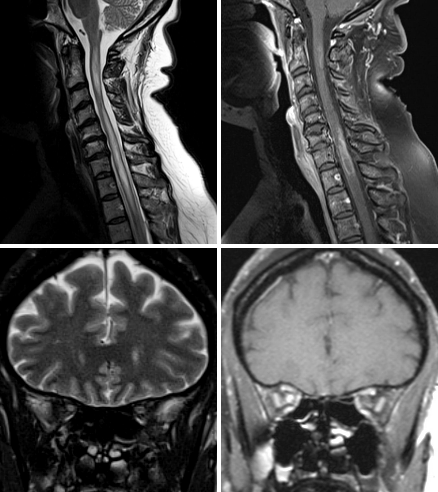 Figure 1: Sagittal T2 (top row left) and sagittal T1 post-contrast fat-saturated (FS) (top row right) images of the cervical spine demonstrate longitudinally extensive (long segment > 2 vertebral bodies in length) T2 hyperintense lesions in the spinal cord with ill-defined enhancement. Coronal T2-FS (bottom row left) and coronal T1 post-contrast FS (top row right) images of the orbits demonstrate an enhancing T2 hyperintense right optic nerve. The longitudinally extensive lesions in the cervical spinal cord, clinical and imaging findings of optic neuritis, and serology positivity for AQP-4 antibodies (NMO-IgG) are consistent with Neuromyelitis Optica.