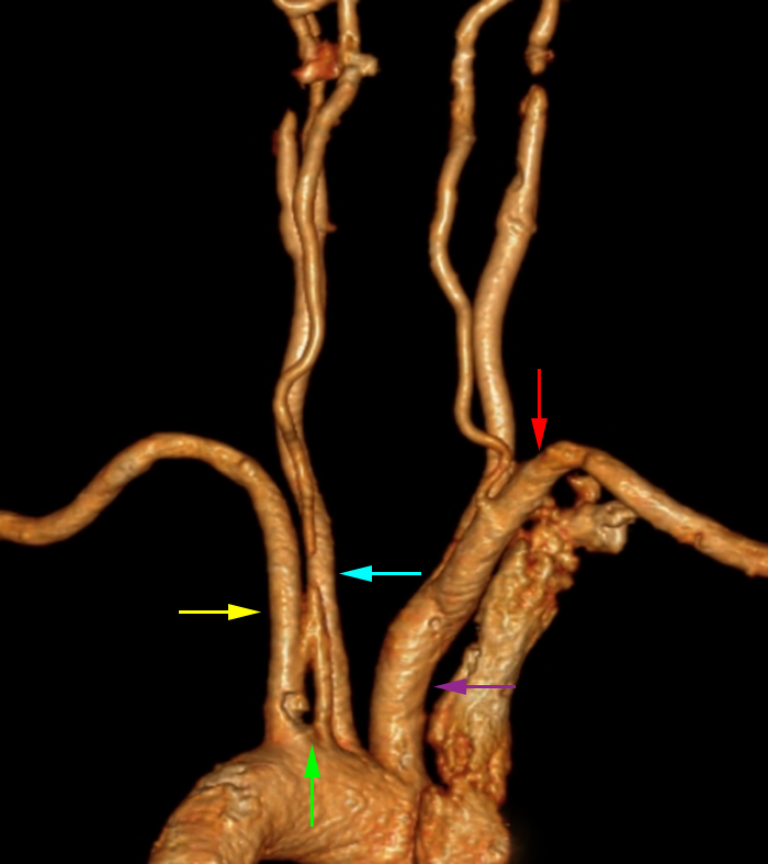 Figure 2: CT Angiogram of the neck – maximal intensity projection 3-D reformat, posterior oblique view. This image demonstrates a common variant in which the left vertebral artery arises from the aortic arch (green), creating a four vessel aortic arch. The other artery origins from the aortic arch are as follows: left subclavian artery (yellow arrow), left common carotid artery (blue arrow), and the brachiocephalic trunk (purple). There is a conventional origin of the right vertebral artery origin from the left subclavian artery (red arrow).