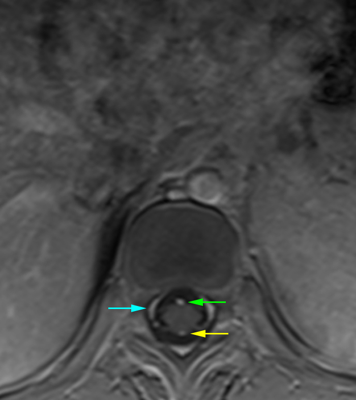 Figure 5: Axial MRI of the thoracic spine at the T11 vertebral body level with contrast. There are only a couple of arteries that can be identified on MRI lining the spinal cord. Anteriorly, one can typically see the anterior spinal artery (green arrow) while posteriorly, one can typically see one or two of the posterior spinal arteries (yellow arrow). The vessels along the lateral aspect of the spinal canal is the internal vertebral venous plexus (blue arrow).