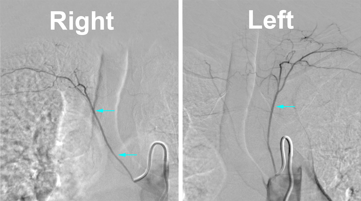 Figure 6: Conventional spinal angiogram utilizing digital subtraction angiography. These images demonstrate the supreme intercostal origin of the cervical spinal artery (blue arrows) which is occasionally visualized but can be difficult to catherize at times.