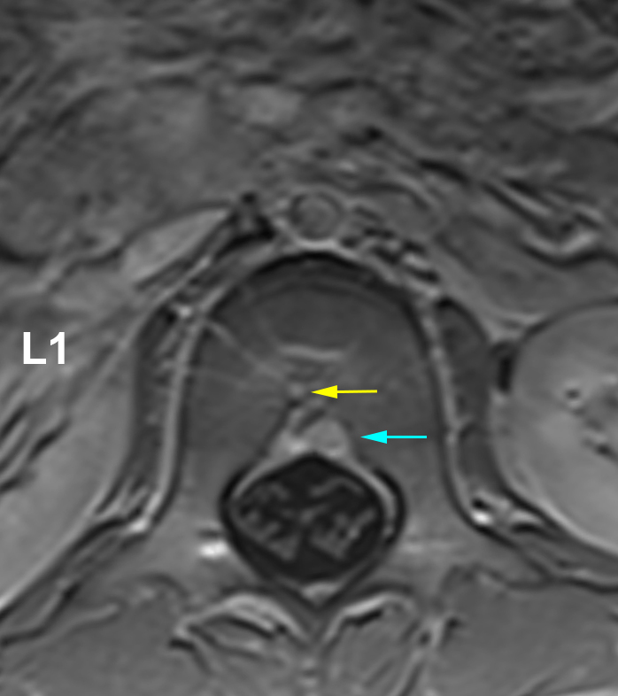 Figure 13: Axial MRI image of the lumbar spine at the L1 vertebral body level with contrast. With contrast administration, along the anterior aspect of the spinal canal, the Batson's venous plexus is highlighted (blue arrow). There are additional veins that are extending through the central aspect of the vertebral body corresponding to the basivertebral vein (yellow arrow).