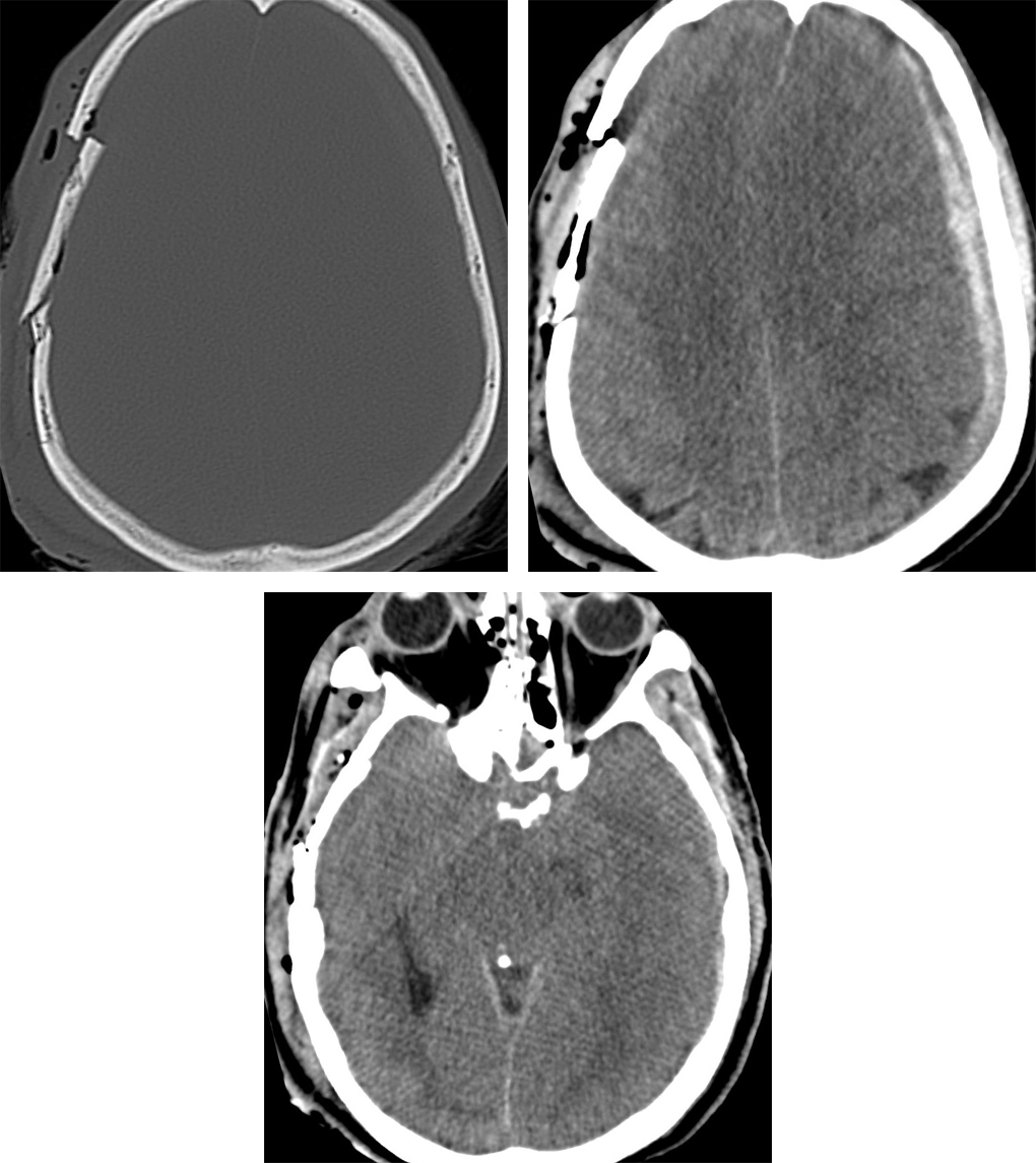 Figure 2: CT on bone window (top row left) clearly demonstrates a depressed right calvarial fracture with override of the fragments. Low density foci of scalp soft tissue emphysema and pneumocephalus are also visible. CT on brain window in the same patient makes the left subdural hematoma much more clearly visible. Midline shift is also present indicating subfalcine herniation (top row right). The basal cisterns are also effaced in this patient (bottom row), indicating the degree of mass effect from edema and hematoma.