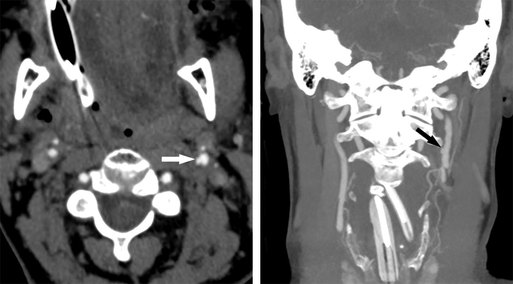 Figure 2: Axial (left) and coronal MIP (right) CT angiogram images through the neck in this patient after motor vehicle accident demonstrates a small focal outpouching of the left cervical internal carotid artery representing pseudoaneurysm due to vascular injury. The adjacent left internal carotid artery is also irregular and widened, suggestive of dissection.