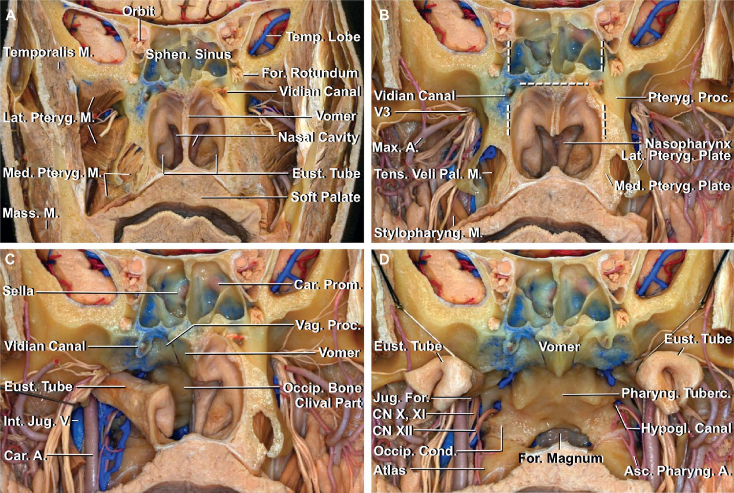 FIGURE 5. A-D, stepwise dissection of the nasopharynx and clivus. A, anterior view of a coronal section just in front of the pterygoid process. The sphenoid sinus, nasal cavity, and nasopharynx offer corridors to the clivus. The infratemporal fossa, containing the lateral and medial pterygoid muscles, branches of the maxillary artery, mandibular nerve, and pterygoid venous plexus, is located lateral to the nasal cavity and nasopharynx. B, the pterygoid muscles, lower part of the temporalis muscles, and vomer have been removed. The vidian canal is located at the lower lateral corner of the sphenoid sinus floor, where a horizontal line along the sinus floor meets a vertical line along the lateral wall of the sphenoid sinus and the medial pterygoid plate. C, the right pterygoid process, tensor, and levator veli palatini muscles and the nasopharyngeal structures, except the right eustachian tube, have been removed while preserving the vidian canal. The eustachian tube extends from the middle ear, passes along the posterior edge of the medial pterygoid plate, and opens into the nasopharynx. The internal carotid artery and internal jugular vein are positioned behind the foramen ovale and branches of the mandibular nerve. D, the pterygoid processes have been removed on both sides, and the eustachian tubes have been retracted laterally to provide an anterior view of the clivus and the adjacent area. The anterior edge of the exocranial orifice of the jugular foramina is located at almost the same level as the anterior edge of the pharyngeal tubercle. The soft palate sits at the level of the foramen magnum.