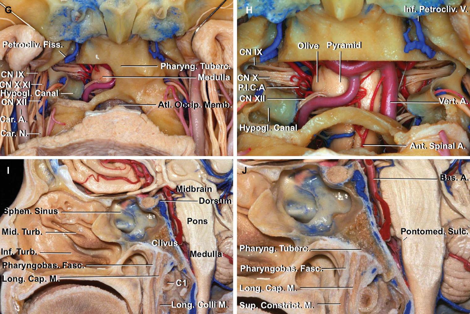 FIGURE 9. G-L. G, the right lower clivus has been drilled while preserving the vidian canal, articular facet of the occipital condyle, and anterior edge of the foramen magnum. The triangular area surrounded by the petroclival fissure, jugular foramen, and hypoglossal canal corresponds to the site of the jugular tubercle on the intracranial surface. Cranial nerves IX, X, and XI course just behind the jugular tubercle. H, enlarged view. The lower clivus has been drilled bilaterally. Opening the lower clival dura exposes the anterior surface of the medulla and the vertebral, posterior inferior cerebellar, and anterior spinal arteries. The glossopharyngeal and vagus nerves arise from the retro-olivary sulcus rostral to and behind the level of origin of the hypoglossal rootlets. The whole cisternal segment of these nerves can be exposed by drilling of the jugular tubercle. The accessory rootlets are hidden by the hypoglossal canals and the vertebral arteries. I, midsagittal section of another specimen showing the relationship between the posterior nasopharynx and lower clivus. The anterior surface of the clivus leans approximately 45° anterior in the view through the nasal cavity. The posterior nasopharyngeal wall has 3 layers: mucosal, fascial, and muscular. The pharyngobasilar fascia and longus capitis muscles are attached to the clivus; the longus colli muscles are attached to the atlas. The rectus capitis anterior muscle is not shown because the muscle is situated lateral to the midline. J, enlarged view. The pharyngobasilar fascia diminishes in thickness as it descends and gradually blends into the superior pharyngeal constrictor at the level of soft palate. The anterior edge of the pharyngeal tubercle is located at almost the same level as the pontomedullary sulcus. A., artery; Ant., anterior; Asc., ascending; Atl., atlanto; Bas., basilar; Cap., capitis; Car., carotid; CN, cranial nerve; Cond., condyle; Conf., confluence; Constrict., constrictor; Eust., eustachian;