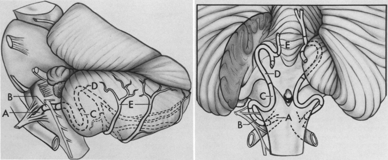 FIG. 1. Normal anatomy of the posterior inferior cerebellar artery (PICA). Left: Lateral view of the brain stem and cerebellum demonstrating the normal course of the PICA and its division into five segments (A-E). The anterior medullary segment (A) begins at the PICA-vertebral junction and becomes continuous with the lateral medullary segment (B) as it courses rostrally, caudally, or through the rootlets of the hypoglossal nerve. The lateral medullary segment extends to the rootlets of the glossopharyngeal, vagal, and accessory nerves. The tonsillomedullary segment (C) extends from these rootlets and often forms a caudally convex loop (caudal loop). It then turns rostrally and at the midportion of the tonsil becomes continuous with the telovelotonsillar segment (D). This segment frequently has a rostrally convex loop (cranial loop) near the roof of the fourth ventricle. The telovelotonsillar segment then runs through a cleft between the vermis medially and the tonsil and cerebellar hemispheres laterally to become continuous with the cortical segment (E). This segment divides into a medial branch which passes posteriorly and superiorly close to the midline to supply the vermis, and lateral branches, which pass laterally to supply the inferior surface of the cerebellar hemispheres. Right: Posterior view. Note the intimate relationship of the lateral medullary segment (B) to rootlets of the ninth, 10th, and 11 th cranial nerves. The anterior medullary (A), lateral medullary, and tonsillomedullary (C) segments give off brain-stem perforators. The telovelotonsillar segment is in close proximity to the roof of the fourth ventricle. Cortical segments (E) begin as the PICA passes out of the fissure between the vermis medially and the tonsil and cerebellar hemispheres laterally.