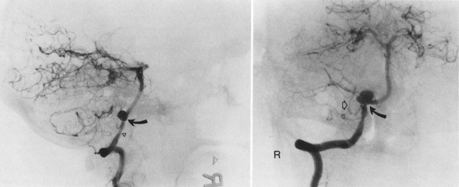 FIG. 3.Left: Subtracted right vertebral angiogram, lateral projection, demonstrating an aneurysm (curved arrow) arising from the junction of the right posterior inferior cerebellar artery (PICA) and the right vertebral artery. In this projection, this 11-mm aneurysm projects cephalad and upward toward the anterolateral surface of the medulla. There is mild arterial spasm (arrowhead) of the intradural segment of the right vertebral artery immediately preceding the PICA origin.Right: Subtracted right vertebral angiogram, anteroposterior transfacial projection, illustrating the orientation of the PICA-vertebral aneurysms relative to the medially directed vertebral artery and the laterally oriented PICA. The aneurysm (curved arrow) projects cephalad. Additional arterial spasm is present in the lateral medullary segment of the PICA (open arrow).