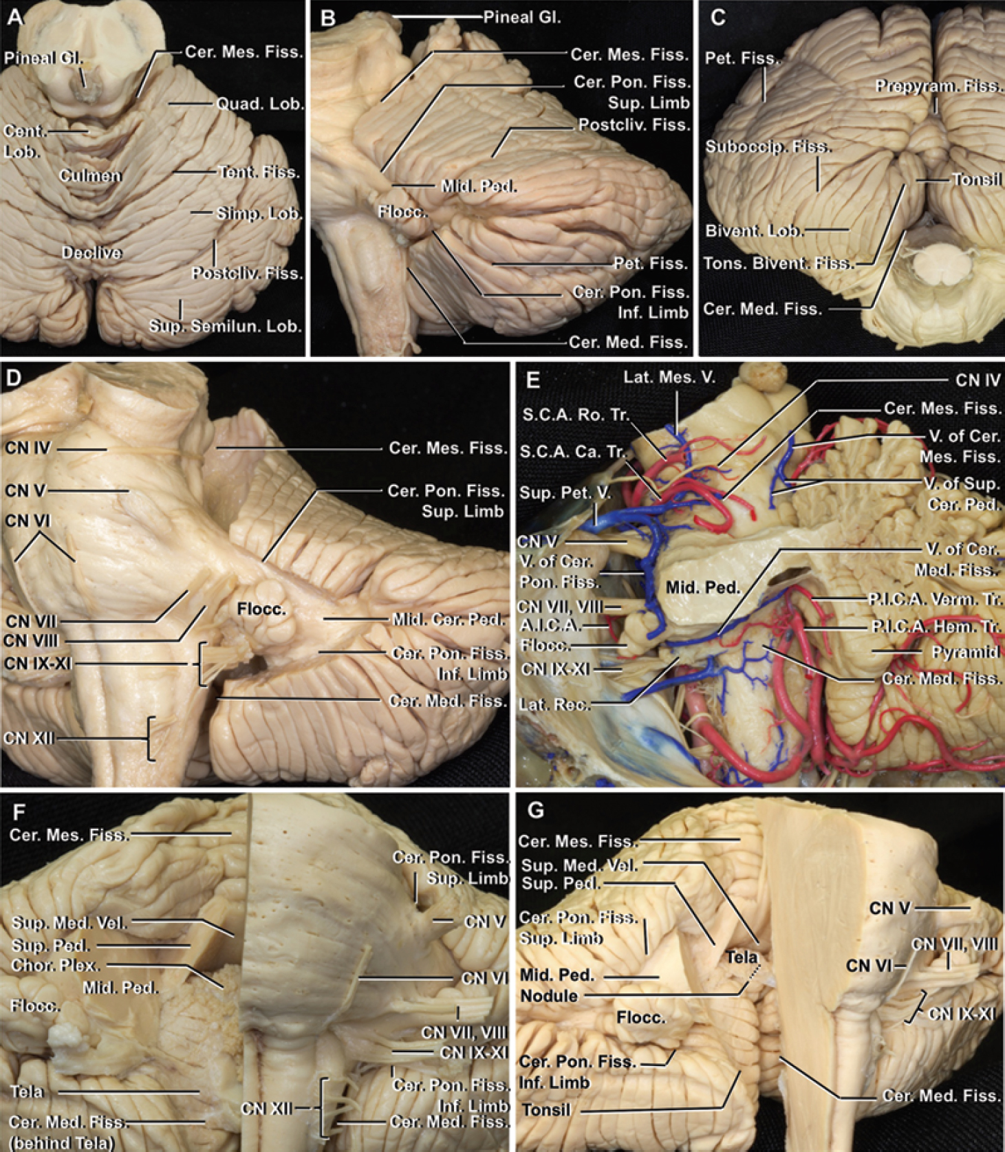 FIG. 1. Cerebellar-brainstem and cerebellar fissures and fourth ventricle. a: The tentorial (primary) and postclival fissures are located on the tentorial surface that faces the lower surface of the tentorium. The cerebellomesencephalic fissure, also referred to as the precentral cerebellar fissure, separates the tentorial surface from the dorsal surface of the midbrain. b: The petrosal surface faces forward toward the posterior surface of the temporal bone and wraps around the pons and the middle cerebellar peduncles to form the superior and inferior limbs of the cerebellopontine fissure. The petrosal (horizontal) and postclival fissures extend laterally and superiorly from the apex of the cerebellopontine fissure. The cerebellopontine fissure is continuous with the cerebellomesencephalic fissure superiorly and cerebellomedullary fissure inferiorly. c: The suboccipital surface, exposed in the suboccipital operative approaches and located below and between the sigmoid and transverse sinuses, is the site of the suboccipital fissure, which has a vermian part called the prepyramidal fissure, and a hemispheric part referred to as the prebiventral and tonsillobiventral (secondary) fissures. The cerebellomedullary fissure separates this surface from the medulla. d: Removing the cerebellar margin of the 3 cerebellar-brainstem fissures exposes the interior of the fissures and the areas of communication between these fissures. e: Posterolateral view. Removing the left half of the cerebellum exposes the 3 cerebellar-brainstem fissures and major vessels in these fissures. F: The right half of the brainstem has been removed to provide an anterior view of the cerebellomesencephalic and cerebellomedullary fissures, and the roof of the fourth ventricle formed, from rostral to caudal, by the superior and inferior medullary vela, and the tela choroidea, in which the choroid plexus arises. g: Removing the tela choroidea in the roof of the fourth ventricle exposes the surface of the nodule and tonsil facing the cerebellomedullary fissure. A.I.C.A. = anterior inferior cerebellar artery; Bivent. = biventral; Ca. = caudal; Cent. = central; Cer. = cerebellar, cerebello; Chor. Plex. = choroid plexus; CN = cranial nerve; Fiss. = fissure; Flocc. = flocculus; Gl. = gland; Hem. = hemispheric; Inf. = inferior; Lat. = lateral; Lob. = lobule; Med. = medullary; Mes. = mesencephalic; Mid. = middle; P.I.C.A. = posterior inferior cerebellar artery; Ped. = peduncle; Pet. = petrosal; Pon. = pontine; Postcliv. = postclival; Prepyram. = prepyramidal; Quad. = quadrangular; Rec. = recess; Ro. = rostral; S.C.A. = superior cerebellar artery; Semilun. = semilunar; Simp. = simple; Suboccip. = suboccipital; Sup. = superior; Tent. = tentorial; Tons. = tonsillo; Tr. = trunk; V. = vein; Vel. = velum; Verm. = vermian.