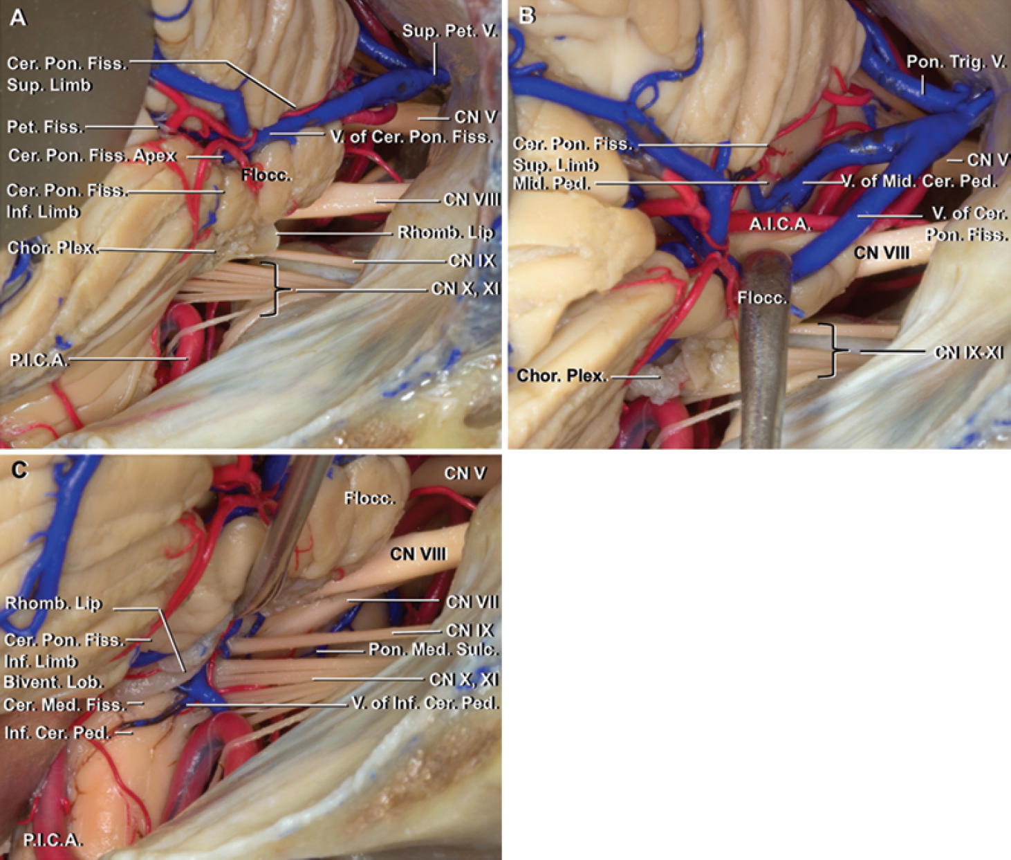 FIG. 5. Approaches to the cerebellopontine fissure. Retrosigmoid exposure of the right cerebellopontine fissure. a: View before the cerebellopontine fissure is opened. The vein of the cerebellopontine fissure runs along the superior limb of the fissure. The foramen of Luschka, rhomboid lip, and choroid plexus are located above the inferior limb. The suprafloccular cistern, located above the flocculus at the apex of the cerebellopontine fissure, is a site to open the arachnoid to drain CSF and identify the vein of the cerebellopontine fissure. b: Supraflocculuar approach. Opening the arachnoid along the superior limb of the cerebellopontine fissure in the suprafloccular approach provides access to the lateral surface of the middle cerebellar peduncle and trigeminal nerve. The vein of the cerebellopontine fissure has been gently retracted caudally. c: Infrafloccular approach. Opening the lower part of the inferior limb of the cerebellopontine fissure and superolateral edge of the cerebellomedullary fissure allows elevation of the flocculus, rhomboid lip, and choroid plexus, to expose the junction of CN VII and VIII with the brainstem, dorsolateral medulla, posterior surface of the inferior cerebellar peduncle, and the part of the pontomedullary sulcus deep to the nerves. A.I.C.A. = anterior inferior cerebellar artery; Bivent. = biventral; Cer. = cerebellar, cerebello; Chor. Plex. = choroid plexus; CN = cranial nerve; Fiss. = fissure; Flocc. = flocculus; Inf. = inferior; Lob. = lobule; Med. = medullary; Mid. = middle; P.I.C.A. = posterior inferior cerebellar artery; Ped. = peduncle; Pet. = petrosal; Pon. = pontine, ponto; Rhomb. = rhomboid; Sulc. = sulcus; Sup. = superior; Trig. = trigeminal; V. = vein.