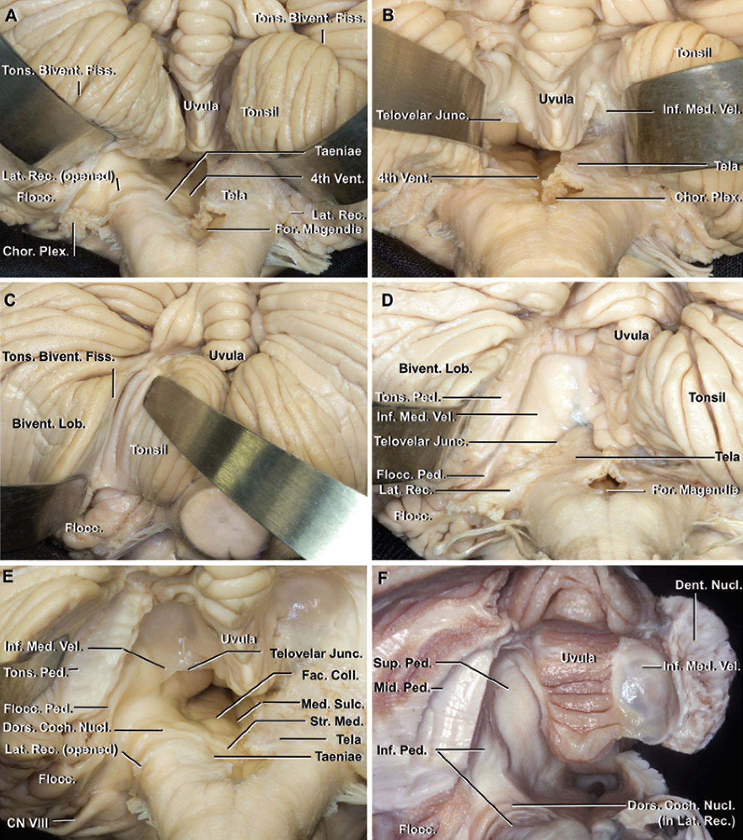 FIG. 6. Cerebellomedullary fissure. a: Elevation of the tonsil and biventral lobule and opening of the medullotonsillar space and lateral recess provides access to the fourth ventricle, lateral recess, and lower surface of the flocculus. The spatula is on the tonsillobiventral fissure. The floor of the fourth ventricle and the left lateral recess have been exposed by incising the tela adjacent to the inferolateral margin of the fourth ventricle and lateral recess. b: Opening the uvulotonsillar space by retracting the tonsil laterally exposes the supratonsillar space and provides access to the telovelar junction and inferior medullary velum. c: Opening the left tonsillobiventral fissure exposes the tonsillar peduncle at the superolateral edge of the tonsil, and provides access to the area just below the dentate nucleus and middle and inferior cerebellar peduncles. d: The left tonsillar peduncle has been divided and the tonsil removed. The tonsillar peduncle, located along the superolateral margin of the tonsil, is the only neural attachment of the tonsil to the remainder of the cerebellum. e: Both tonsils have been removed and the tela and left lateral recess have been opened. The peduncle of the flocculus, the connection between the lateral edge of the inferior medullary velum and the flocculus, is located just ventral to the tonsillar peduncle. The lateral recess, the site of the dorsal cochlear nucleus, is located ventral to the peduncle of the flocculus. The striae medullaris and facial colliculus, which are landmarks for the safe entry zones in the floor of the fourth ventricle, are exposed on the left half of the floor. F: The tonsillar peduncle is formed mainly by fibers of the middle cerebellar peduncle. The inferior cerebellar peduncle is located ventromedial to the middle cerebellar peduncle, and forms the inferior half of the lateral wall of the fourth ventricle. The dorsal cochlear nucleus sits on the dorsal surface of the inferior cerebellar peduncle. Bivent. = biventral; Chor. Plex. = choroid plexus.; CN = cranial nerve; Coch. = cochlear; Coll. = colliculus; Dent. = dentate; Dors. = dorsal; Fac. = facial; Fiss. = fissure; Flocc. = flocculus, floccular; For. = foramen; Inf. = inferior; Junc. = junction; Lat. = lateral; Lob. = lobule; Med. = median, medullary; Mid. = middle; Nucl. = nucleus; Ped. = peduncle; Rec. = recess; Str. Med. = stria medullaris; Sulc. = sulcus; Sup. = superior; Tons. = tonsillar, tonsillo; Vel. = velum; Vent. = ventricle.
