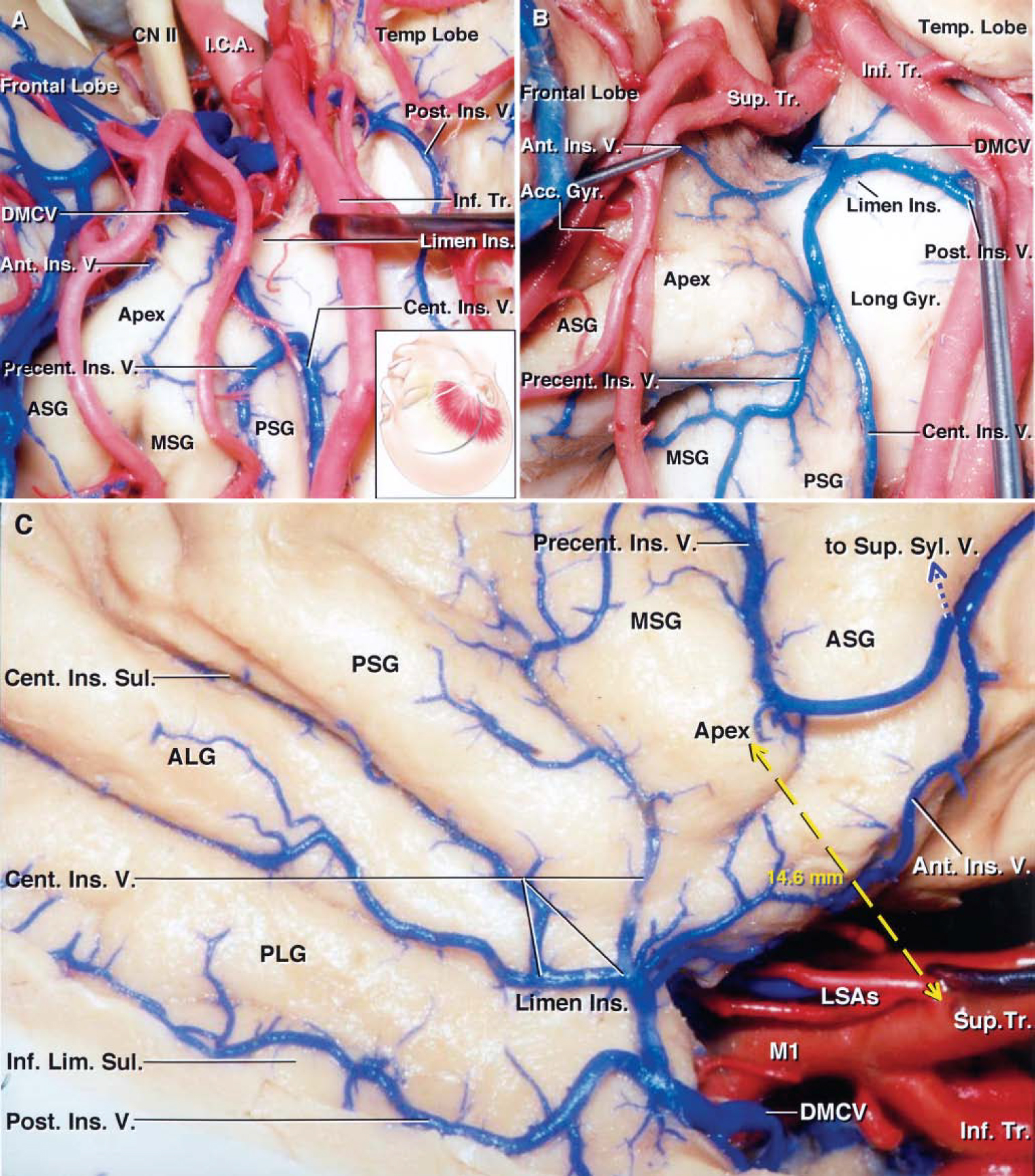 FIG. 10. Photographs obtained during cadaveric dissection. A: Right pterional exposure. The inset shows the position of the head and skin incision for the frontotemporal craniotomy. The sylvian fissure has been widely opened and the frontal and temporal opercula have been retracted to expose the anterior half of the insula. The inferior trunk has been retracted to expose the junction of the central and precentral insular veins forming a common stem. The central insular vein courses along the central insular sulcus and drains the sulcus and the adjacent portion of the anterior short gyrus. The precentral insular vein drains the middle and posterior short gyri. The posterior insular vein courses along the inferior limiting sulcus and joins the deep MCV in the limen area. B: Another right pterional exposure. The M2branches have been retracted to expose the formation of the deep MCV. The precentral insular vein drains the middle short gyrus and insular apex and joins the central insular vein behind the apex. The central insular vein courses along the central insular sulcus and joins the precentral insular vein to form a common trunk, which receives the anterior and posterior insular veins forming the deep MCV at the limen insulae. C: Lateral view of right cerebral hemisphere. The frontoparietal and temporal opercula have been retracted to expose the course of the insular veins. The four insular veins and the initial portion of the deep MCV have been exposed. The anterior insular vein courses downward and backward near the anterior limiting sulcus, drains the anterior limiting sulcus and anterior short gyrus, and empties into the deep MCV. The precentral insular vein, the insular vein most commonly connected with the SSV, drains the middle short gyrus and the insular apex, crosses the anterior short gyrus, and turns superficially to empty into the SSV without contributing to the formation of the deep MCV. The central insular vein courses anteroinferiorly; drains the cent