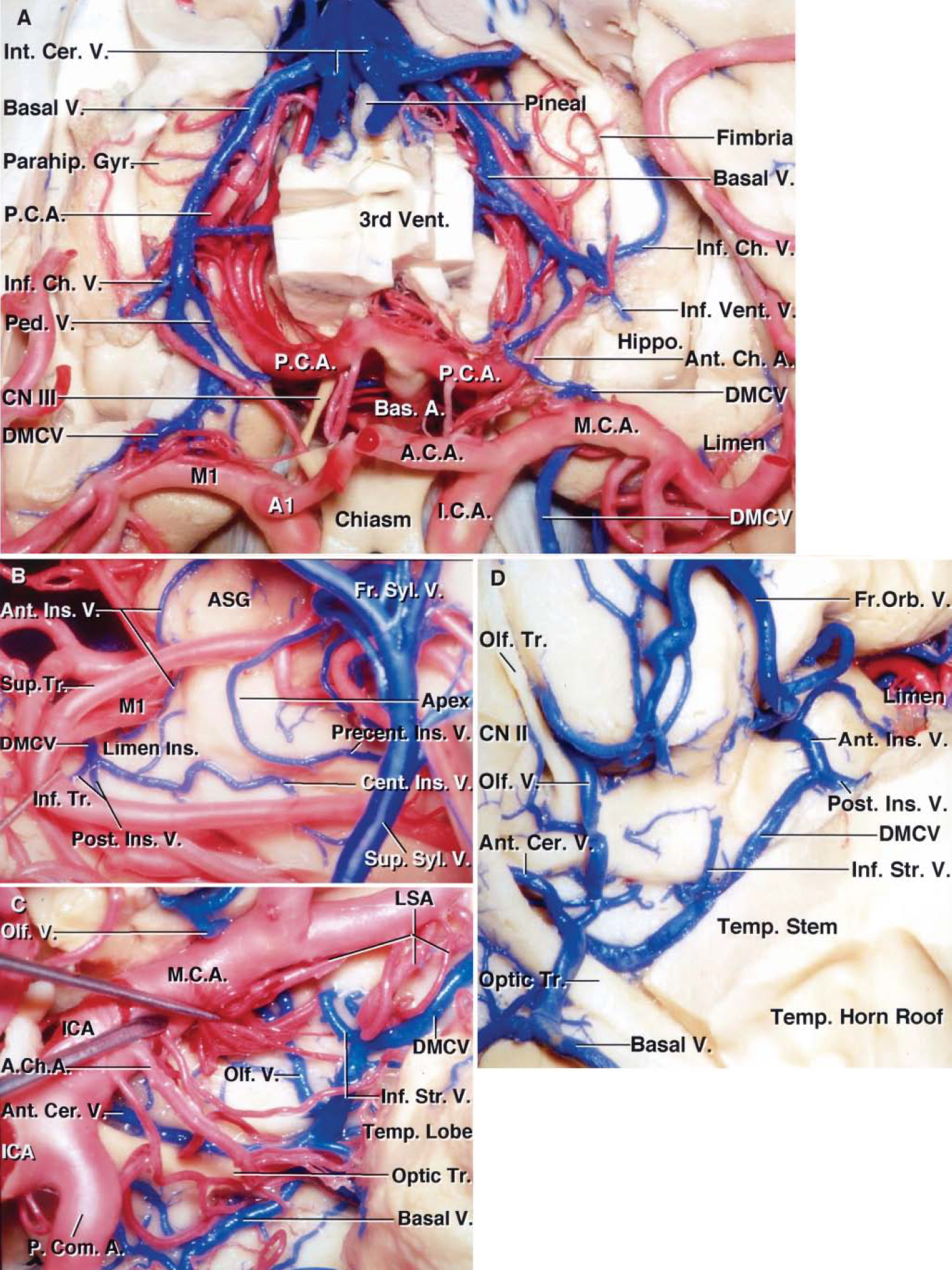 FIG. 11. Photographs obtained during cadaveric dissection, showing variations in the termination pattern of the deep MCV. A: Anterosuperior view. The anterior portions of both cerebral hemispheres have been removed to expose the temporal horns, basal cisterns, deep MCVs, basal veins, and PCAs. The PCAs arise from the basilar artery in the interpeduncular cistern and pass around the brainstem. The anterior choroidal arteries course around the left and right unci to reach the temporal horns. The right deep MCV passes around the limen area to join the basal vein. The right basal vein passes above the PCA in the crural and ambient cisterns. The anterior segment of the basal vein ends where the peduncular vein joins the basal vein at the anterolateral portion of the cerebral peduncle. The inferior choroidal vein joins the basal vein at the posterior edge of the cerebral peduncle. On the left side, the anterior segment of the basal vein is hypoplastic and the deep MCV courses below the M1segment and empties into the sphenoparietal sinus along the sphenoid ridge. The middle segment of the basal vein passes around the brainstem above the PCA and is joined by the inferior ventricular and choroidal veins. Both basal veins join the vein of Galen in the quadrigeminal cistern. Views of the deep MCV draining into a left basal vein (B and C). B: Lateral view of the anteroinferior portion of the left insula. The frontoparietal and temporal opercula have been retracted. The MCA bifurcation has been retracted anteriorly to expose the insular veins. The precentral insular vein joins the SSV. The central and posterior insular veins join at the limen insulae to form the deep MCV. The anterior insular vein courses near the anterior limiting sulcus and joins the deep MCV. C: Anteroinferior view of the anterior perforated substance of the left hemisphere shown in B. The prebifurcation M1segment and the LSAs have been retracted to expose the formation of the anterior segment of the basal ve