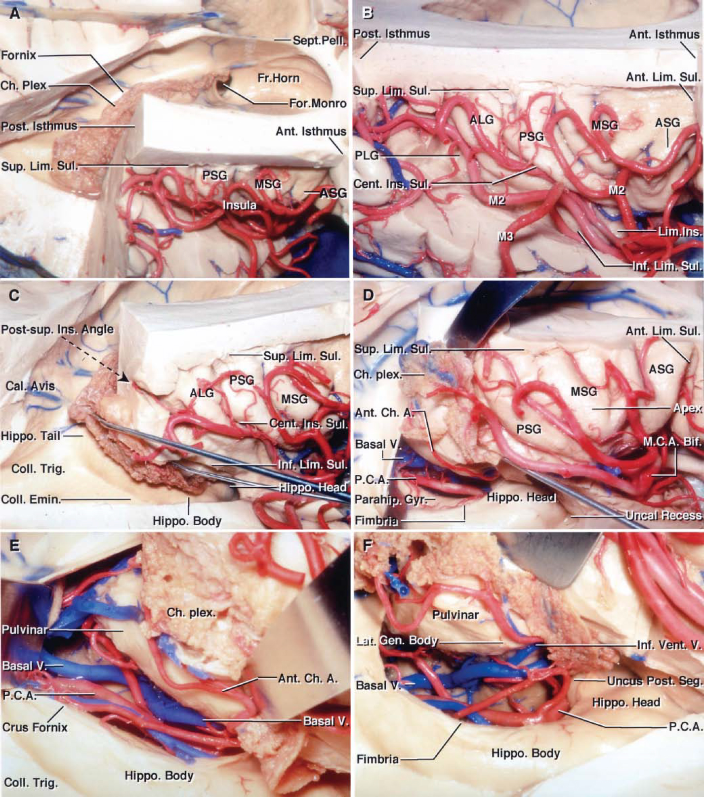 FIG. 13. Photographs obtained during stepwise dissection of left cerebral hemisphere, showing the relationship between the insular cortex and deep landmarks (A–F). A: Superolateral view of the insula and lateral ventricle. The upper portion of the cerebral hemisphere was removed using an axial cut approximately 1 cm above the posterior ramus of the sylvian fissure. The frontoparietal operculum has been removed to expose the insula lateral to the frontal horn and the body of the lateral ventricle. The anterior portion of the superior limiting sulcus is separated from the frontal horn by the anterior isthmus, and the posterior portion of the limiting sulcus is separated from the atrium by the posterior isthmus. The choroid plexus is attached along the choroidal fissure, located between the fornix and thalamus. The foramen of Monro is located deep to the posterior short gyrus. B: Enlarged lateral view. The M2branches course along the insula. Most of the branching occurs near the insular pole. The central insular sulcus is the site most replete with insular perforating arteries. C: Posterolateral view of the same hemisphere. The lateral wall of the atrium and the roof of the temporal horn have been removed by dividing the white matter along the inferior limiting sulcus. The posterosuperior insular angle at the junction of the superior and inferior limiting sulci is superficial to the junction of the tail of the hippocampus, calcar avis, and anterior wall of the atrium. The choroid plexus has been elevated to expose the floor of the temporal horn, which is formed by the collateral eminence overlying the collateral sulcus laterally and the hippocampus medially. D: The incision along the inferior limiting sulcus has been extended forward to where the incision begins for the transinsular approach into the temporal horn for a selective amygdalohippocampectomy. The choroidal fissure in the temporal horn has been opened by separating the fimbria of the fornix and choroid plexu