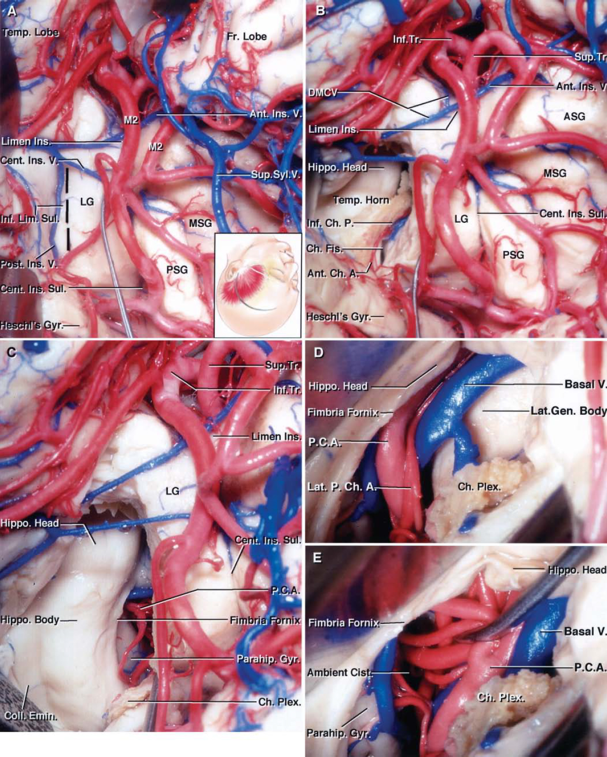 FIG. 14. Photographs obtained during a cadaveric dissection involving the left transylvian transchoroidal approach to the basal cisterns (A–E). A: Left frontotemporal exposure. The inset shows the position of the head and skin incision for the frontotemporal craniotomy. The sylvian fissure has been opened and the temporal operculum has been retracted to expose the anterior half of the insula. The M2branches have been retracted to show the position of the incision (dashed black line) along the inferior limiting sulcus. The cortical incision through the inferior limiting sulcus begins approximately 1 to 2 cm posterior to where the anterior end of the long gyrus fuses with the temporal pole and extends posteriorly approximately 1.5 to 2 cm. The anterior one half of the inferior limiting sulcus is devoid of larger perforating arteries. The incision is made lateral to the inferior MCA trunk between the M2branches, which run parallel to the inferior limiting sulcus. The cortical incision along the inferior limiting sulcus can be located medially, as shown in this photograph, or lateral to the posterior insular vein without sacrificing the vessel. B: The cortical incision, at a depth of approximately 0.5 cm in most hemispheres, provides access to the anterior portion of the temporal horn. The amygdala is located at the anterior edge of the cortical incision in the anterior wall of the temporal horn. This approach exposes the head and body of the hippocampus. The inferior choroidal point, the site at which the anterior choroidal artery passes through the choroidal fissure, is located near the middle of the exposure. The distance between the inferior limiting sulcus and inferior choroidal point is approximately 11 mm. C: The choroidal fissure has been opened by dividing the attachment of the choroid plexus to the fimbria of the fornix, and the choroid plexus has been elevated toward the thalamus. This approach exposes the hippocampus and collateral eminence in the floor of t
