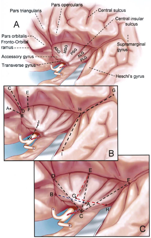 FIG. 3. Drawings of the lateral view of the left opercular and insular areas. A: The opercular and insular areas are labeled. B: Distances between the points in this figure are listed in Table 1. Points A, C, and E were located at the apices of the partes orbitalis, triangularis, and opercularis, respectively. The measurements from A to B, C to D, and E to F are the depths from the cortical surface along the opercular lips of the inferior frontal gyrus to the anterior and superior limiting sulci. Point I was located at the proximal end of the Heschl gyrus on the cortical surface of the superior temporal gyrus, and Point H was situated at the posterior end of the Heschl gyrus (the junction of the superior and inferior limiting sulci). The measurement from G to H was the distance between the supramarginal gyrus and the posterior end of the insula. Point J was located at the insular apex, the highest or the most prominent laterally projecting point on the insular convexity. Point K was situated at the origin of the most lateral LSA from the MCA. C: Enlarged view of the insula. The distances between the points in this figure are featured in Table 2. The points are located as follows: A, inferior end of central insular sulcus; B, midpoint of anterior limiting sulcus; C, inferior limit of limen insulae; D and F, junctions of anterior and superior, and superior and inferior limiting sulci, respectively; E and H, midpoints of superior and inferior limiting sulci, respectively; and G, apex of insula. See legend to Fig. 1 for definitions of abbreviations.