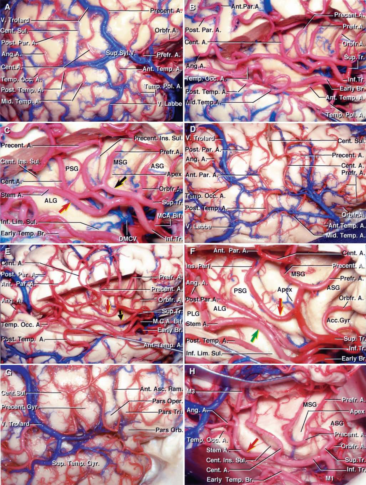 FIG. 6. Photographs obtained during stepwise dissections of the right cerebral hemisphere (A–C), demonstrating the insular and opercular branches of the MCA. A: Lateral view of the hemisphere showing the gyri and sulci bordering the sylvian fissure, which are supplied by the cortical branches of the MCA. The cortical arteries include the orbitofrontal, prefrontal, precentral, central, anterior parietal, posterior parietal, angular, temporooccipital, posterior temporal, middle temporal, anterior temporal, and temporopolar arteries. The vein of Trolard runs between the SSV and the superior sagittal sinus. The SSV also has a large anastomosis with the vein of Labbé. B: The frontoparietal operculum has been removed while preserving the branches that form the M2and M3segments. The cortical arteries can be followed from their origin along the insula to the cortex. The M1bifurcates proximal to the genu near the limen insulae. The early temporal branch, arising from the prebifurcation M1segment, gives rise to the temporopolar, anterior temporal, middle temporal, posterior temporal, and temporooccipital arteries. The superior trunk gives rise to orbitofrontal, prefrontal, and precentral arteries along its course around the pole of the insula. The inferior trunk gives rise to the central, anterior and posterior parietal, and angular arteries. All of the cortical branches arising from the early branch, except for the temporopolar artery, course along the posterior long gyrus and inferior limiting sulcus, and contribute to the supply of these insular areas. C: Enlarged view of the insula. At the pole of the insula, the superior trunk gives rise to its first cortical branch, the orbitofrontal artery, prior to reaching the insular apex. The orbitofrontal artery courses along the most anteroinferior part of the insula and contributes to the supply of the anterior short gyrus. The prefrontal and precentral arteries arise from a common stem artery (black arrow) near the level of the