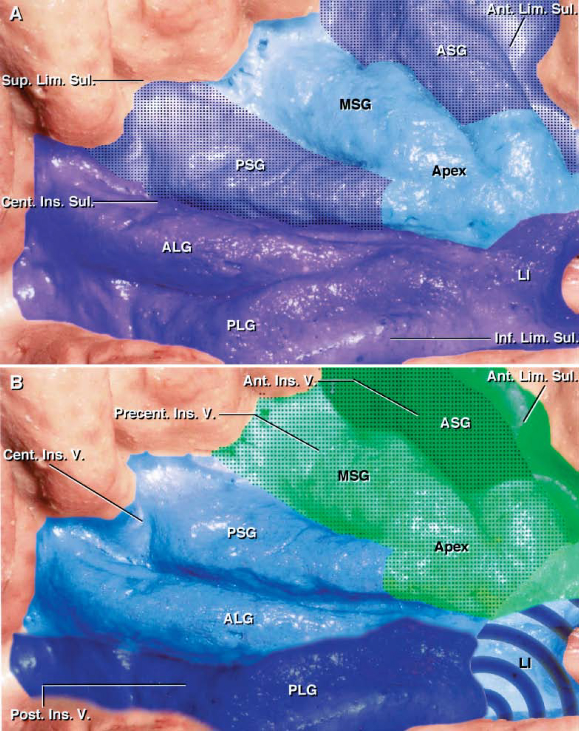 FIG. 9. A: Diagram of the insular areas drained by the superficial and deep venous systems in 43 hemispheres. See Table 7 for a listing of the insular areas drained by the superficial and/or deep venous systems. The territory drained by the deep venous system is shaded purple, whereas that drained by the superficial venous system is light blue. The limen area, inferior limiting sulcus, long gyri, and central insular sulcus are drained by the deep MCV (purple area). The SSV drained the middle short gyrus and insular apex more commonly than any other insular area (light blue area). The transitional zone, which is usually drained by both the superficial and deep venous systems, included the anterior and posterior short gyri and the anterior limiting sulcus (stippled area). These transitional areas emptied three to eight times more frequently into the deep MCV than the SSV. B: Diagram of areas drained by insular veins. See Table 8 for a listing of the insular areas drained by the four insular veins. The territory drained by each insular vein is shaded a different color: anterior insular vein (dark green), precentral insular vein (light green), central insular vein (light blue), and posterior insular vein (dark blue). The areas having significant anastomotic connections with the SSV are stippled. The anterior insular vein drained the anterior limiting sulcus and the anterior short gyrus (dark green area). Although the anterior short gyrus was drained by the anterior insular vein in the majority of hemispheres, the frontosylvian veins contributed to drainage in almost half of the cases (stippled area). The precentral insular vein drained the middle short gyrus and insular apex and displayed more anastomoses with the SSV than any other insular vein. The frontosylvian veins contributed to drainage of the middle short gyrus and insular apex in more than 80% of the hemispheres (stippled area). The central insular vein drained the posterior short and anterior long gyri and the