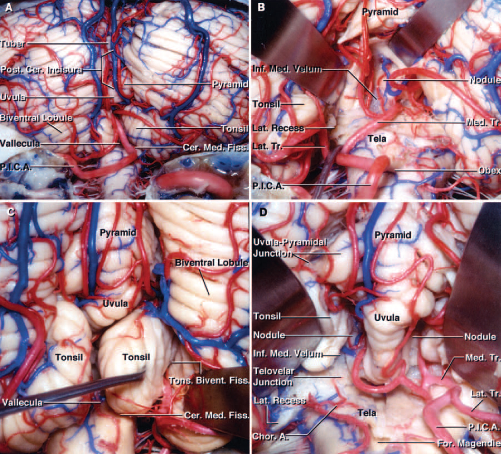 FIG. 1. Photographs demonstrating posterior views of cadaveric brain specimens. The suboccipital surface of the cerebellum and the cerebellomedullary fissure are shown. Panels A and B show one specimen and C and D another. A: The suboccipital surface is located below and between the sigmoid and transverse sinuses and is the surface exposed during a wide bilateral suboccipital craniotomy. The vermis sits in a depression, the posterior cerebellar incisura that lies between the hemispherical surfaces. The cerebellomedullary fissure extends superiorly between the cerebellum and the medulla oblongata. The vallecula extends upward between the tonsils and communicates through the foramen of Magendie with the fourth ventricle. The left PICA courses below the lower pole of the tonsil to reach the lower margin of the cerebellomedullary fissure and supplies part of the suboccipital surface. B: The left tonsil has been retracted laterally and the uvula medially to expose the inferior portion of the roof of the fourth ventricle. The inferior portion of the roof is formed by the tela choroidea and the inferior medullary velum. The bifurcation of the PICA into the medial and lateral trunks has been retracted to show the lateral recess. Some branches of the medial trunk, which supplies the vermis, course along the uvulotonsillar space along with the vein of the cerebellomedullary fissure. C: The right tonsil has been retracted medially from the biventral lobule. The tonsils, the most prominent structures blocking access to the caudal portion of the fourth ventricle, are attached to the cerebellar hemisphere along their superolateral borders. The fissure between the tonsil and the biventral lobule is called the tonsillobiventral fissure. D: Enlarged posterior view of the same hemisphere. Both tonsils have been retracted laterally to expose the inferior medullary velum and the tela choroidea. The choroidal arteries course along the tela choroidea, from which the choroid plexus projec