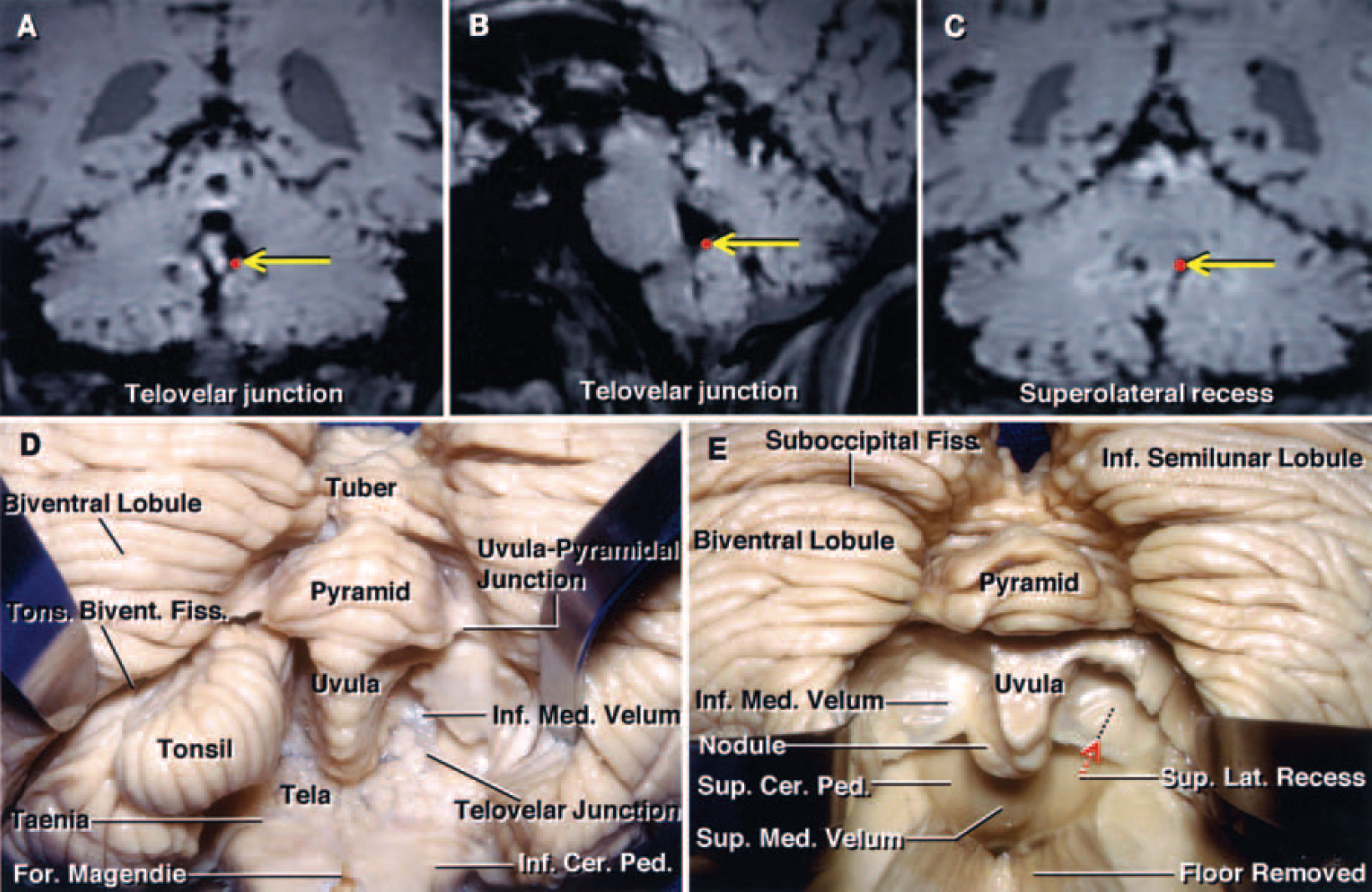 FIG. 2. A–C: Coronal (A and C) and sagittal (B) MR images of a cadaveric brain obtained from the Stealth workstation, demonstrating the location of the telovelar junction (red dotsindicated byyellow arrowsin A and B) and the superolateral recess (red dotindicated byyellow arrowin C). D and E: Photographs of cadaveric brain specimens showing the stepwise dissection of the suboccipital surface of the cerebellum and the inferior portion of the fourth ventricle. D: The left biventral lobule has been retracted to show the tonsillobiventral fissure. The right tonsil has been removed by dividing the peduncle of the tonsil located along the superolateral margin of the tonsil. The uvula projects downward between the tonsils, mimicking the anatomy in the oropharynx. The uvulopyramidal junction, the broadest strip of vermis within the posterior cerebellar incisura, limits the lateral retraction of the tonsils. The telovelar junction is the line of attachment of the tela to the velum. E: Both tonsils and part of the floor have been removed to expose the superior medullary velum and the superolateral recess. The inferior medullary velum is a thin bilateral layer of neural tissue that extends from the nodule medially and blends into the dorsal margin of each lateral recess, forming the peduncle of each flocculus laterally. The incision through the inferior portion of the vermis during the transvermian approach exposes the underlying nodule, which must be incised to gain access to the fourth ventricle. This incision through the vermis is limited by the position of the superior medullary velum, which is closely related to the anterior portion of the nodule. The superior medullary velum forms the medial part of the superior half of the roof and expands laterally and posteriorly from the aqueduct to the level of the fastigium and lateral recess. The superolateral recess, located within the fourth ventricle and lateral to the uvula and nodule, is medial to the superior cerebellar pedu