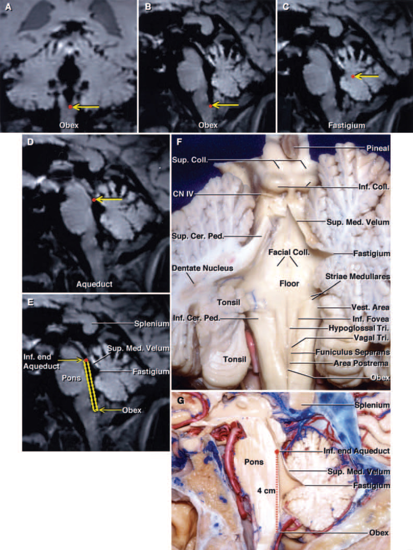 FIG. 3. A–E: Stealth MR images demonstrating the anatomical landmarks (red dotsindicated byyellow arrows) along the floor and roof of the fourth ventricle. Coronal (A) and sagittal MR images (B) demonstrating the location of the obex. Sagittal MR images (C and D) revealing the fastigium and aqueduct. Sagittal MR image (E) depicting the floor of the fourth ventricle and its relation to the superior medullary velum and fastigium. (This brain section is located at approximately the same level as the sagittal section of a cadaver shown in panel G.) F: The cerebellum has been cut at the midline and the left half has been sectioned further in an oblique coronal plane to show the relationship of the rostral pole of the tonsil to the dentate nucleus. The dentate nucleus appears to wrap around the tonsil. The fibers of the superior cerebellar peduncle arise in the dentate nucleus and ascend in the medial side of the superior cerebellar peduncle. The striae medullaris cross the midportion of the floor. The vestibular area, the portion of the floor that is lateral to the median eminence and the sulcus limitans, is located at the lateral limit of the floor of the fourth ventricle. The inferior fovea is a depression in the sulcus limitans located lateral to the hypoglossal triangle. The median eminence contains the facial colliculi in its upper part and the hypoglossal and vagal triangles and the area postrema in its lower portion. The median eminence is crossed by the funiculus seperans. The trochlear nerves arise below the inferior colliculus. G: Sagittal section of a hemisphere. The full length of the floor of the fourth ventricle from the inferior edge of the aqueduct to the obex is approximately 4 cm. The roof of the fourth ventricle is a tent-shaped structure. The apex of the roof, the fastigium, is the site of the roof's greatest height and width. The superior half of the roof expands posteriorly from the aqueduct to the level of the fastigium. This sagittal section corre