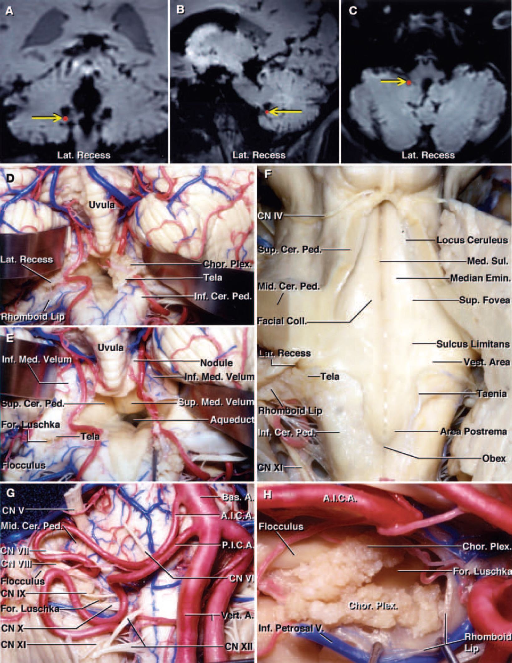 FIG. 4. A–C: Coronal (A), sagittal (B), and axial (C) MR images of a cadaveric head obtained from the Stealth workstation, demonstrating the lateral recess (red dotsindicated byyellow arrows). The point marked on all three images is identical and was obtained from the same cadaver. D and E: Photographs of another cadaveric specimen showning the stepwise dissection of the suboccipital surface of the cerebellum. Both tonsils have been retracted superolaterally and the left half of the tela choroidea has been opened (D). The choroid plexus projects from the ventricular surface of the tela choroidea into the fourth ventricle. The tela choroidea extends laterally over the inferior cerebellar peduncles and forms the posterior wall of the lateral recesses. View of structures shown in panel D (E). The tela choroidea has been retracted to the right side to expose the entire floor of the fourth ventricle and the aqueduct. The fourth ventricle is continuous with the cerebellopontine angle through the foramen of Luschka at the lateral recess. The superior half of the roof is formed medially by the superior medullary velum and laterally by the inner surfaces of the superior cerebellar peduncles. The inferior medullary velum blends into the peduncles of the flocculus laterally and the surface of the nodule medially. F: The left cerebellar hemisphere, the vermis, and the medial portion of the right cerebellar hemisphere have been removed to expose the full length of the floor of the fourth ventricle. The trochlear nerves arise inferior to the inferior colliculus. The superior and inferior cerebellar peduncles face the surface of the ventricle. The median sulcus divides the floor vertically in the midline. The sulcus limitans divides each half of the floor of the fourth ventricle longitudinally into a medial strip, the median eminence, and a lateral portion, the vestibular area. The sulcus limitans is most prominent at the level of two dimples, the superior and inferior fovea. The 