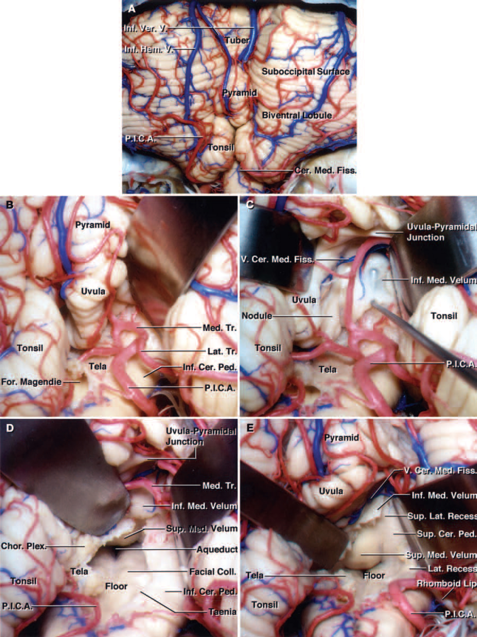 FIG. 6. Photographs of a cadaveric brain specimen showing the telovelar approach to the fourth ventricle. A: After the exposure of the tonsil and biventral lobule, the uvulotonsillar and medullotonsillar spaces on both sides are opened. B: The tonsil has been retracted laterally to expose the right uvulotonsillar space with special attention directed to preservation of the PICA and its bifurcation into the medial and lateral trunks. The PICA bifurcation is located near the inferior end of the uvulotonsillar space, close to the telovelar junction, in aproximately 30% of the specimens. C: The right tonsil has been retracted superolaterally and the uvula medially to expose the right uvulotonsillar space. The tip of a right-angled nerve hook has been placed beneath to the inferior medullary velum in the superolateral recess. The tip of the hook can be seen through the thin inferior medullary velum. D: The uvula has been retracted superomedially and the right tonsil superolaterally to achieve maximum visualization. The PICA bifurcation has been retracted laterally without sacrificing any of the branches of the vessel. If the PICA bifurcation is present at the uvulotonsillar space along the site of the telovelar incision, it is easier to retract it laterally before creating an incision along the tela than to retract it medially in most hemispheres. The incision along the tela choroidea in the right half of the roof has been extended to the telovelar junction. The entire floor of the fourth ventricle from the obex to the aqueduct has been exposed. E: The right half of the inferior medullary velum has been divided to expose the superolateral recess and maximize the exposure along the medial superior half of the roof and superior cerebellar peduncle. Opening the inferior medullary velum increases the exposure of the lower portion of the superior medullary velum near the fastigium. The vein of the cerebellomedullary fissure, which crosses the upper end of the inferior medulla