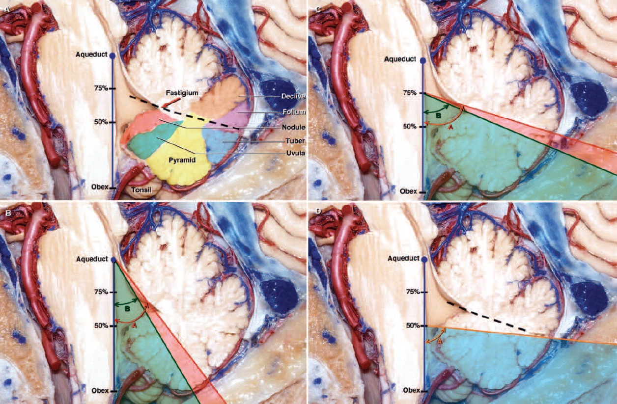 FIG. 9. Diagrams superimposed over photographs of a section of cadaveric brain, demonstrating the comparison of operative angles of the transvermian and telovelar approaches along the floor of the fourth ventricle. The angles were measured along the floor of the fourth ventricle in the sagittal plane. The apex of the angle was placed at three sites along the floor of the fourth ventricle: the aqueduct, the midpoint (50% point) of the distance measured from the obex to the inferior border of the aqueduct, and the 75% point of that distance. A: A sagittal section demonstrating the vermian parts of the suboccipital surface of the cerebellum. The highlighted portions of the vermis are the declive (orange), folium (violet), tuber (blue), pyramid (yellow), uvula (green), and nodule (light red). The fastigium, the apex of the roof of the fourth ventricle, divides the roof into superior and inferior portions and is located between the midpoint and the 75% point, near the midsagittal level. The upper limit of the incision(dotted line)extends through the uvula, pyramid, tuber, and the lower portion of the folium to the fastigium, but not into the inferior edge of the superior medullary velum. B: The transvermian and telovelar approaches provide excellent exposure of the entire floor of the fourth ventricle from the obex to the aqueduct. The mean operative angles of the transvermian and telovelar approaches measured at the aqueduct were 38 ̊ (Angle A) and 30 ̊ (Angle B), respectively. In the sagittal plane the exposure gained at the aqueduct when the telovelar approach is used is shaded green. The mean difference between the operative angles of the two approaches at the aqueduct did not exceed 8 ̊ in favor of the transvermian approach(shaded light red). In both the transvermian and telovelar approaches, the operative angle of approach was limited by the superior medullary velum in the sagittal plane. The limitation was most significant when exposing the rostral end of the four