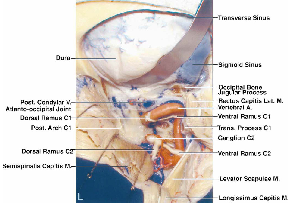 FIG. 2. L–Q: Photographs obtained in another specimen. L: A suboccipital craniectomy has been completed and the right half of the posterior arch of C-1 has been removed. The posterior root of the transverse foramen of the atlas has been removed while preserving the portion of the tip of the transverse process of the atlas to which the rectus capitis lateralis, levator scapulae, and superior oblique muscles attach. The suboccipital nerve, a branch of the C-1 nerve, passes backward between the VA and the posterior arch of the atlas. The occipital condyle and the posterior condylar emissary vein are exposed. The ventral rami of the C-1 and C-2 nerve roots pass behind the VA.