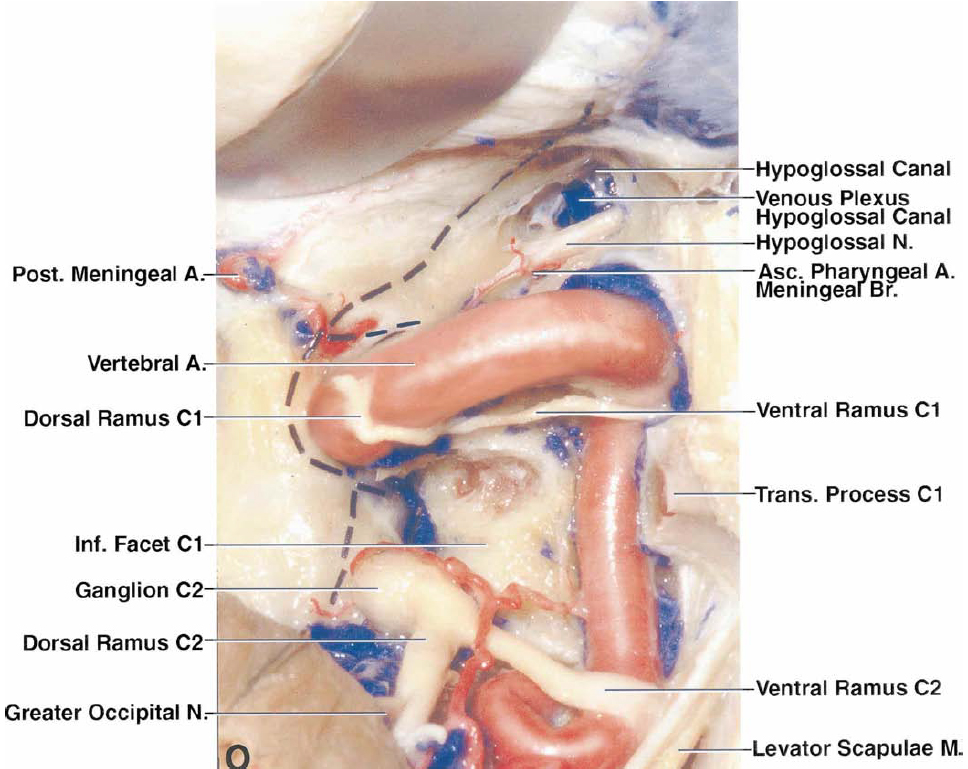 FIG. 2. O: The hypoglossal canal has been opened and a portion of the venous plexus in the canal has been removed to expose the hypoglossal nerve and the meningeal branch of the ascending pharyngeal artery coursing through the hypoglossal canal. The broken line indicates the site of dural opening. The posterior meningeal artery, which originates from the VA and supplies the dura of the posterior fossa, crosses the dural incision and will be obliterated as the dura is opened. The greater occipital nerve arises from the dorsal ramus of the C-2 nerve.