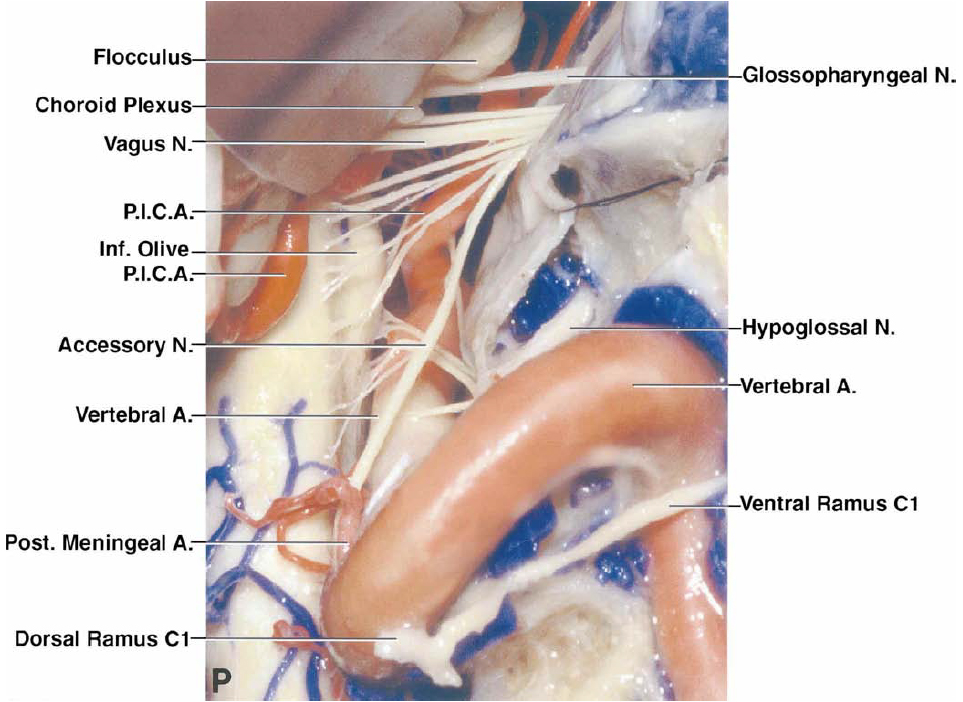 FIG. 2. P: The dura has been opened to expose the intradural course of the nerves entering the jugular foramen and the hypoglossal canal. The dura around the full circumference of the VA has been opened so that the artery can be mobilized at its entrance into the dura.