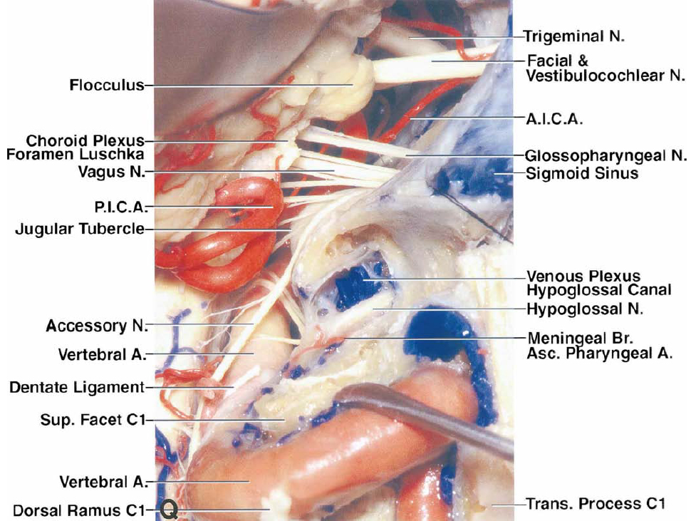 FIG. 2. Q: The nerves in the cerebellopontine angle have been exposed. The glossopharyngeal, vagus, and accessory nerves exit the brainstem behind the olive. The glossopharyngeal and vagus nerves pass anterior to the choroid plexus, which protrudes from the foramen of Luschka. The glossopharyngeal nerve arises as one root and the vagus nerve arises from the brainstem as several rootlets. The cranial portion of the accessory nerve arises from the brainstem as four or five delicate rootlets that ascend laterally to reach the jugular foramen. The hypoglossal nerve arises anterior to the olive and passes behind the VA to reach the hypoglossal canal. The posterior wall of the hypoglossal canal has been removed to expose the hypoglossal nerve, meningeal branch of the ascending pharyngeal artery, and the venous plexus in the canal. The jugular tubercle is located above the hypoglossal canal and serves as a trochlea around which the glossopharyngeal, vagus, and accessory nerves course in their passage from the brainstem to the jugular foramen.