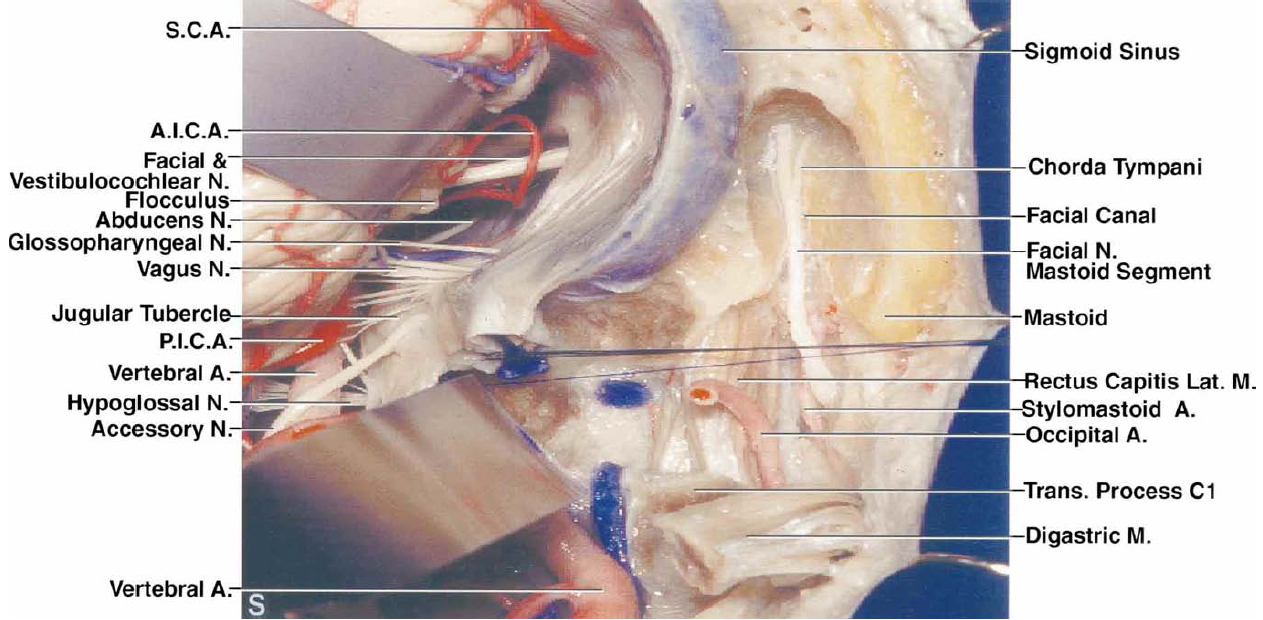 FIG. 2. S: The cerebellum has been elevated to expose the nerves in the cerebellopontine angle. A partial mastoidectomy has been performed to expose the mastoid (descending) segment of the facial nerve in the facial canal and the chorda tympani.