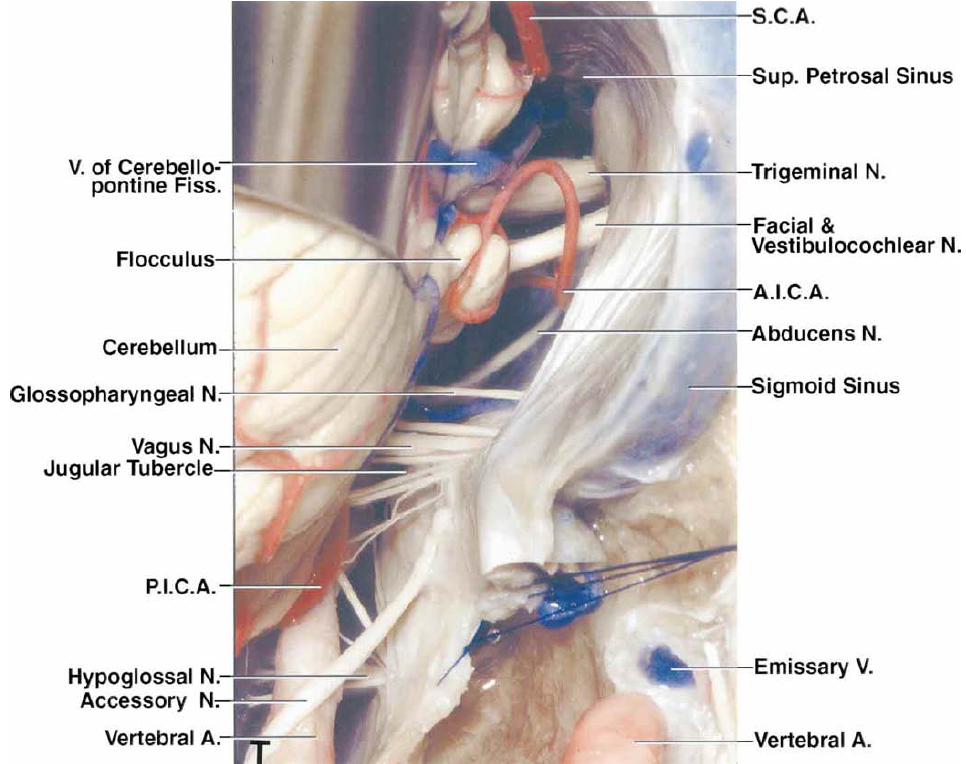 FIG. 2 T: The cerebellum has been elevated to expose the facial and vestibulocochlear nerves, the flocculus, and the trigeminal and abducens nerves. The PICA courses between the rootlets of the vagus nerve to reach the area between the cerebellum and the medulla. The jugular tubercle is located anterior to the glossopharyngeal, vagus, and accessory nerves.