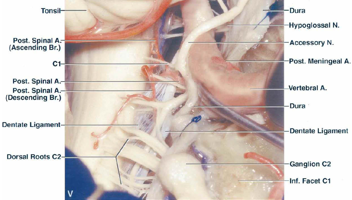 FIG. 2. V: View of the craniocervical junction after opening the dural cuff around the VA. The dura around the VA has been opened so that the artery can be mobilized to gain access to the front of the brainstem. A. = artery; A.I.C.A. = anterior inferior cerebellar artery; Asc. = ascending; Br. = branch; Ext. = external; Fiss. = fissure; Inf. = inferior; Lat. = lateralis; M. = muscle; N. = nerve; Occip. = occipital; P.I.C.A. = posterior inferior cerebellar artery; Post. = posterior; S.C.A. = superior cerebellar artery; Sup. = superior; Trans. = transverse; V. = vein; Vert. = vertebral.