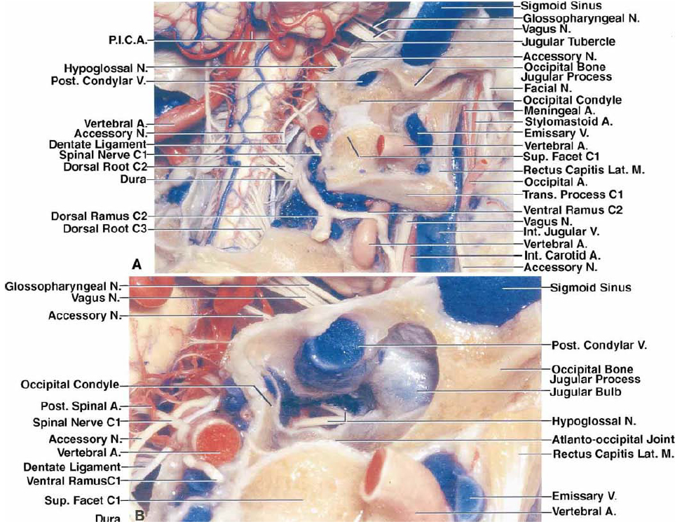 FIG. 4. A-B. Photographs displaying neurovascular relationships in the transcondylar, supracondylar, or paracondylar exposures. A–F: Photographs obtained from the right side. A: A segment of the VA coursing behind the superior articular process of the C-1 has been removed. The articular surface of the occipital condyle faces downward and laterally and the articular surface of the superior facet of C-1 faces upward and medially. The condylar emissary vein passes through the condylar canal and above the hypoglossal canal to connect the vertebral venous plexus with the sigmoid sinus just proximal to the jugular bulb. The jugular process of the occipital bone, which extends laterally from the posterior half of the occipital condyle, forms the posterior edge of the jugular foramen. The rectus capitis lateralis muscle attaches above to the jugular process of the occipital bone behind the jugular foramen and below to the transverse process of C-1. The IJV descends anterior to the rectus capitis lateralis muscle and the transverse process of C-1. The stylomastoid foramen, which transmits the facial nerve and the stylomastoid artery, is located lateral to the jugular foramen. The OA gives rise to the stylomastoid artery, which enters the stylomastoid foramen with the facial nerve, and to a meningeal branch, which passes through the jugular foramen. The hypoglossal canal is directed forward and laterally above the occipital condyle and below the jugular tubercle. B: The cancellous bone within the occipital condyle has been drilled away while preserving the cortical and articular surfaces. The posterior condylar vein, when present, crosses above the occipital condyle and hypoglossal canal. The transition between the sigmoid sinus and the jugular bulb is located lateral to the occipital condyle in front of the jugular process of the occipital bone. The hypoglossal canal, which courses above the occipital condyle and is directed 45˚ laterally from its intracranial end, has been opened to expose the hypoglossal nerve, which commonly enters the hypoglossal canal as two separated bundles that fuse as they approach the extracranial end of the canal. The hypoglossal canal also transmits a meningeal branch of the ascending pharyngeal artery and the venous plexus of the hypoglossal canal. The posterior one-third of the occipital condyle can be removed without entering the hypoglossal canal. The extracranial end of the hypoglossal canal is located medial to the jugular foramen. See p. 582 for definitions of abbreviations.