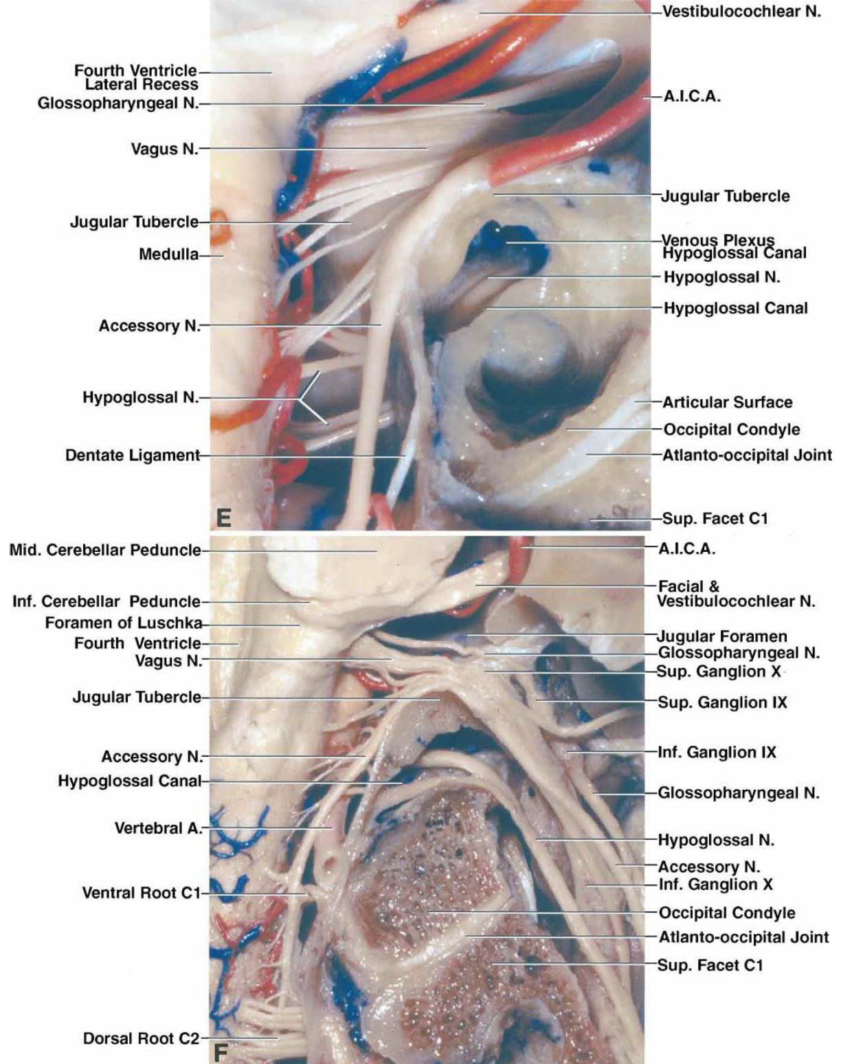 FIG. 4. E–F. E: The hypoglossal canal has been opened to expose the hypoglossal nerve and the venous plexus of the hypoglossal canal. The apex or highest point of the jugular tubercle is located in front of the vagus nerve. F: The jugular process of the occipital bone, which forms the posterior margin of the jugular foramen, the sigmoid sinus, and the jugular bulb have been removed to provide this exposure of the glossopharyngeal, vagus, and accessory nerves as they pass through the jugular foramen and the hypoglossal nerve as it passes through the hypoglossal canal. The posterior portion of the bone adjoining the atlantooccipital joint has been removed to expose the articular surfaces. Bone has been drilled in a supracondylar location above the hypoglossal canal to remove a portion of the jugular tubercle around which the vagus and accessory nerves curve to reach the jugular foramen.