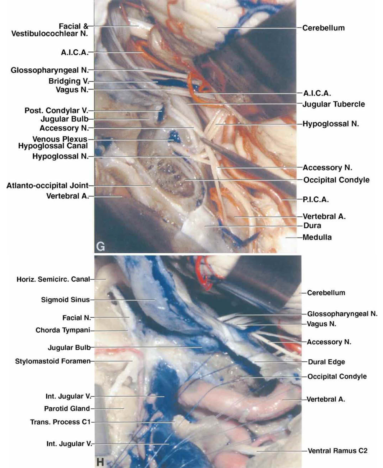 FIG. 4. G–H: Photographs obtained from the left side. G: A left suboccipital craniectomy has been completed and the dura opened. The cerebellum has been elevated to expose the vestibulocochlear nerve entering the internal acoustic meatus and the glossopharyngeal, vagus, and accessory nerves entering the jugular foramen. The bone posterior to the intracranial end of the hypoglossal canal has been removed to expose the nerve entering the canal. The accessory nerve ascends behind the VA and passes across the posterior surface of the jugular tubercle. The medial portion of the jugular bulb has also been exposed. The posterior condylar vein passes above the condyle and the hypoglossal canal to empty into the terminal portion of the sigmoid sinus. A bridging vein passes from the lateral aspect of the medulla to the jugular bulb. H: The rectus capitis lateralis muscle and the posterior belly of the digastric bone have been detached and the jugular process of the occipital bone has been removed to expose the jugular bulb in the jugular foramen. A mastoidectomy has been completed to expose the mastoid segment of the facial nerve and the stylomastoid foramen, which are located lateral to the jugular foramen and the jugular bulb.